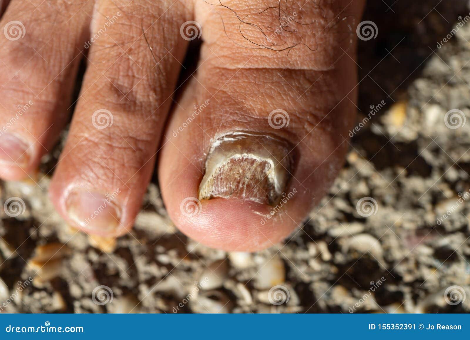Clavo del dedo del pie de Candida Albicans