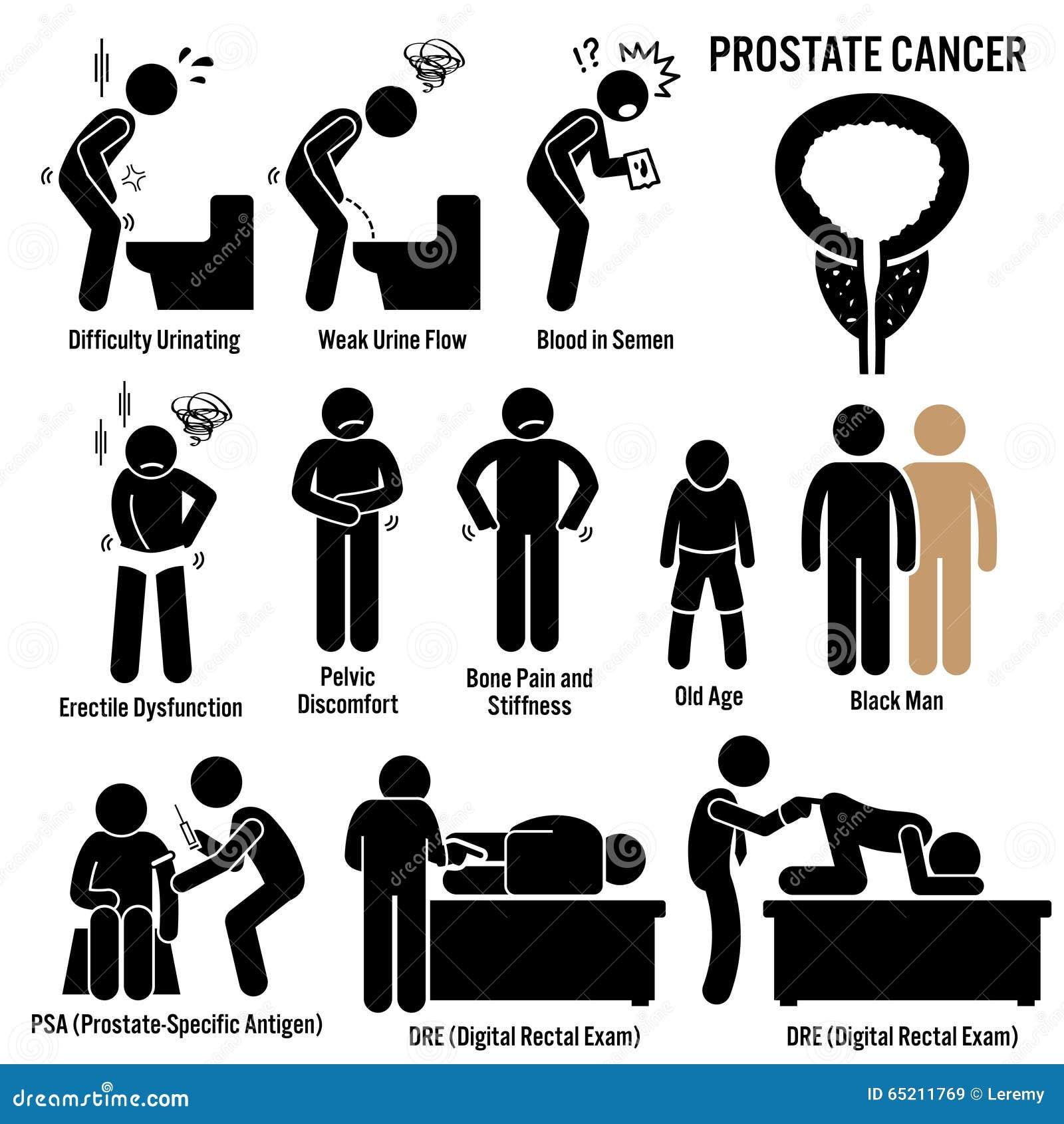 fattori di rischio cancro prostata