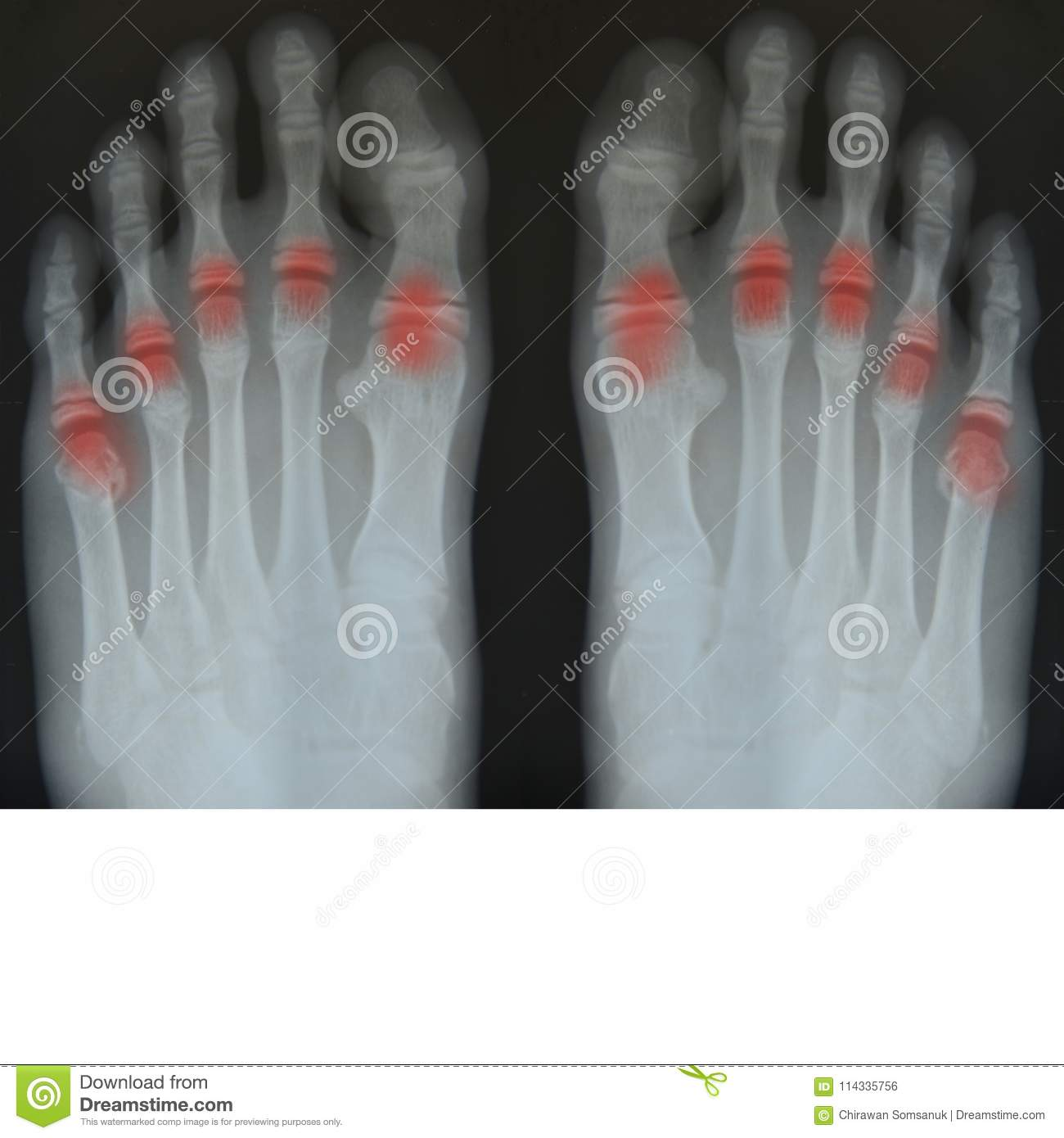 Bone Of Foot X Ray Film Stock Photo Image Of Diagnosis 114335756