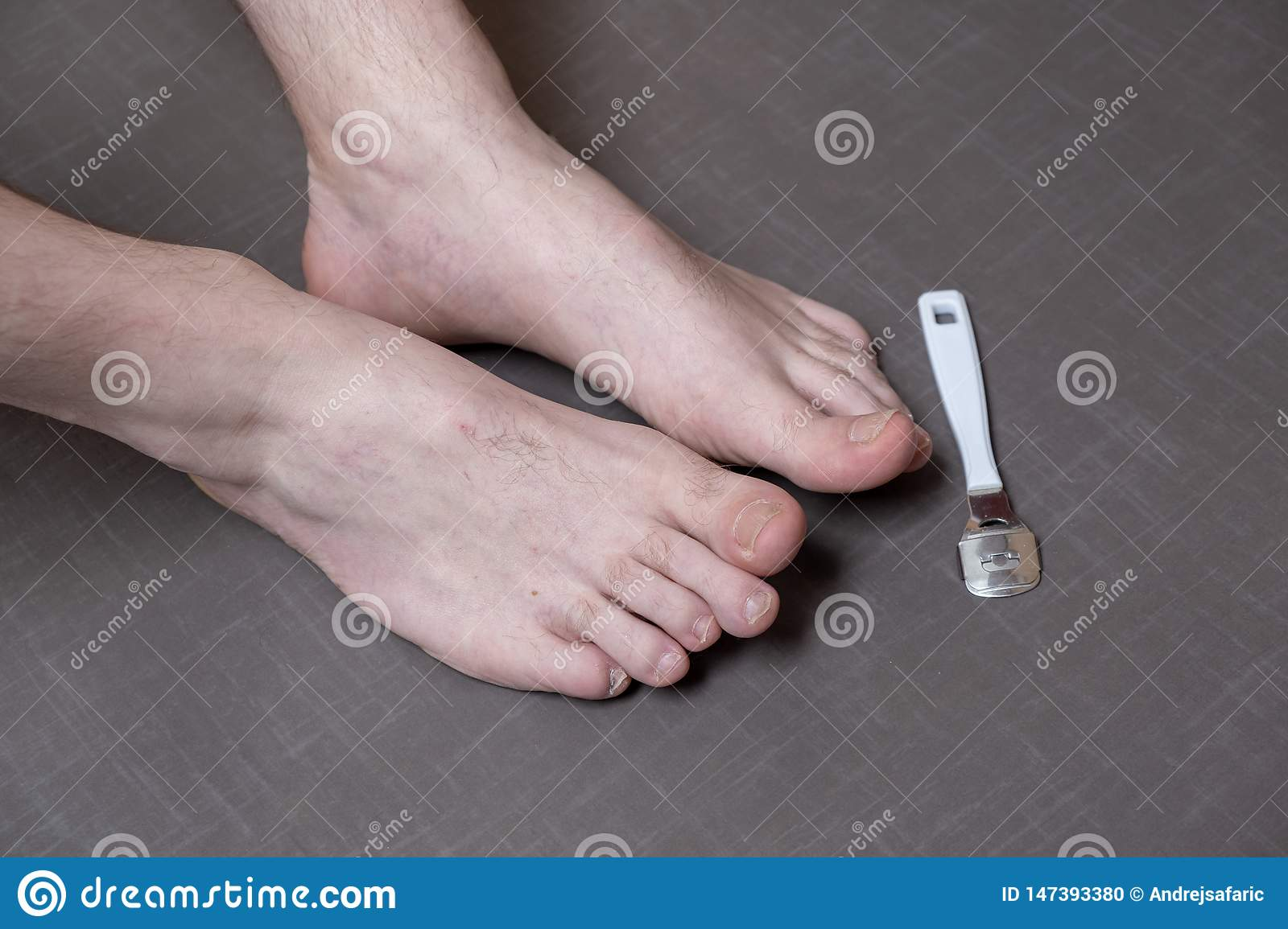 Close up of caucasian male dehydrated skin on the heels, trating callus, corn with scraper file