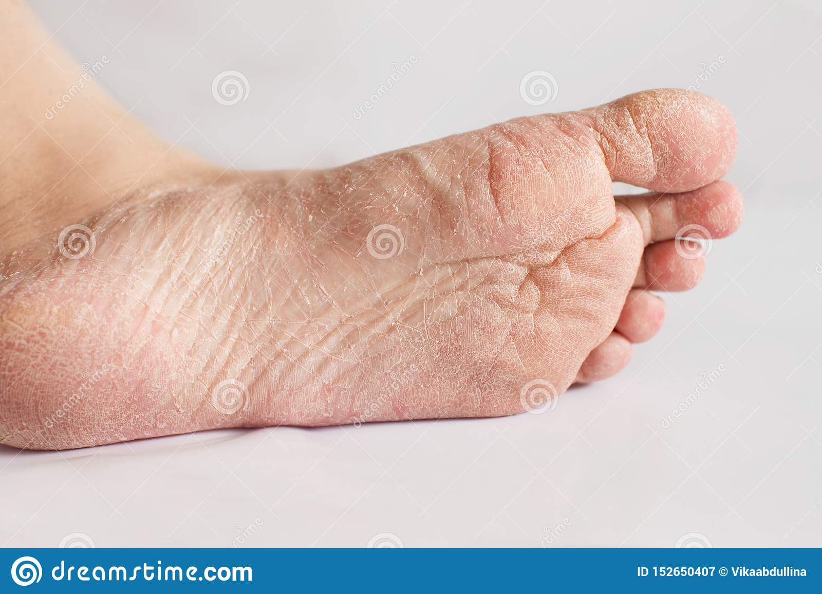 Close Up Cracked Heels. Health Problems