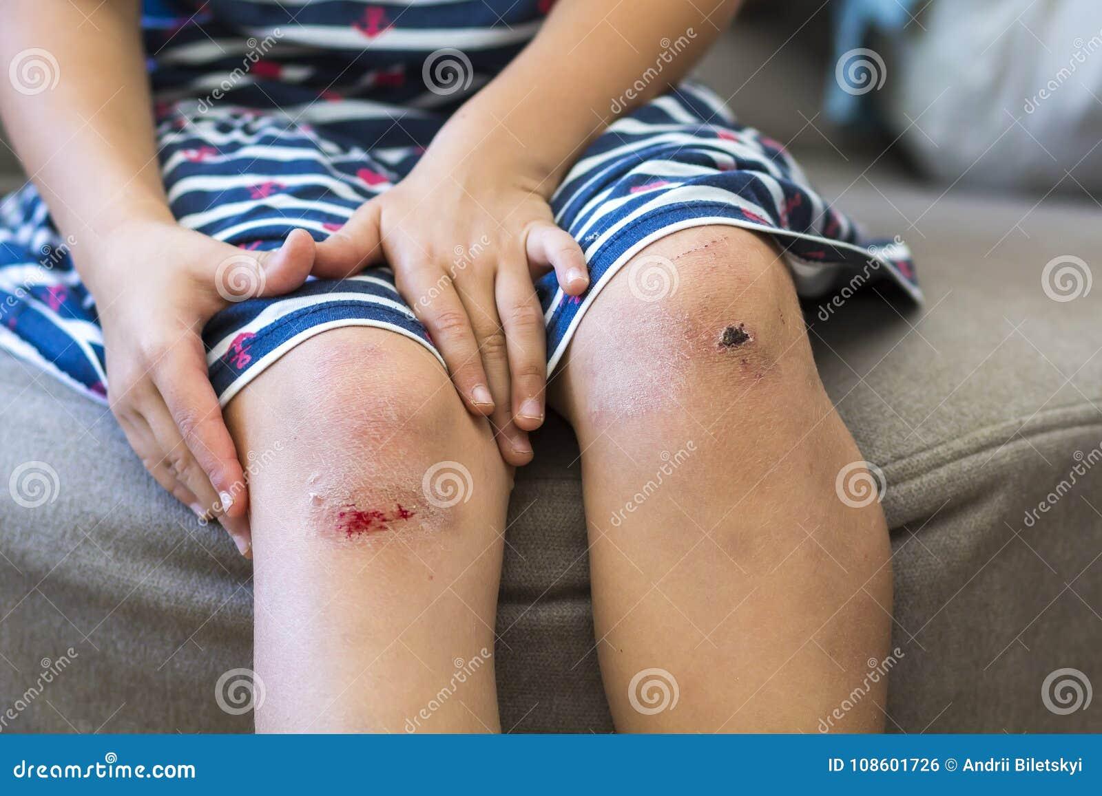 Close-up of little girl holding her bruised injured damaged knee
