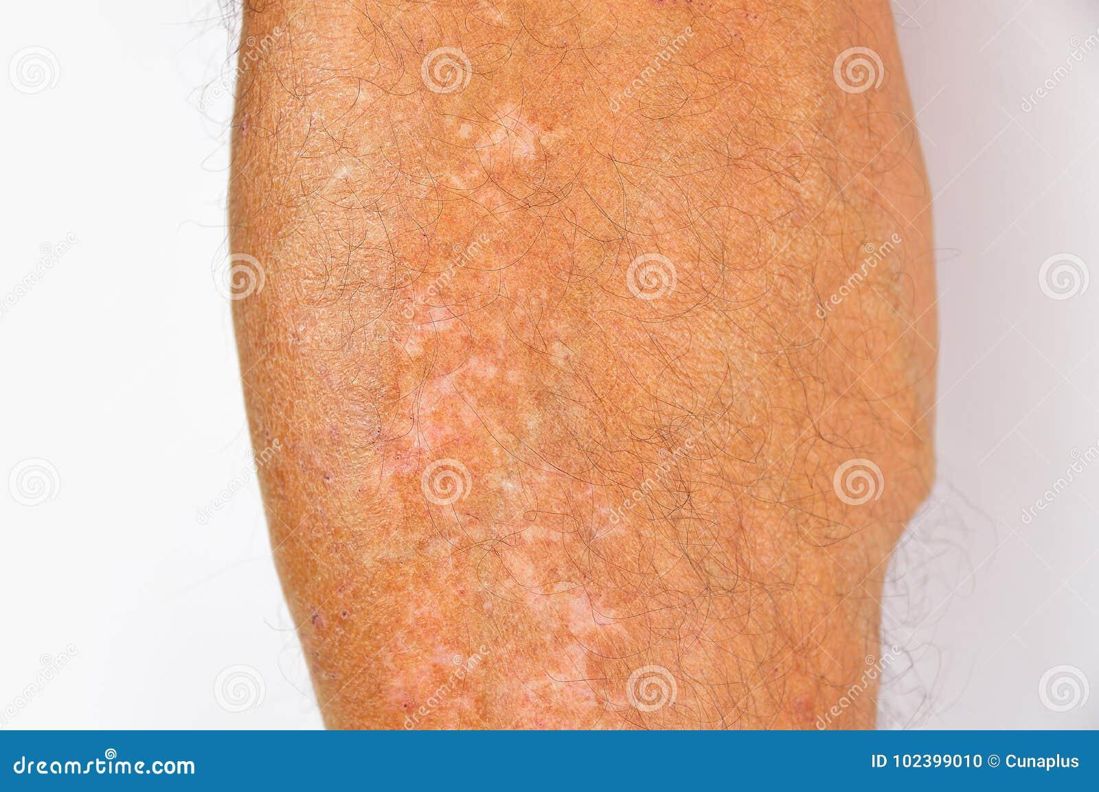 Pigmentation On Legs Stock Photo Image Of Medical Edema 102399010