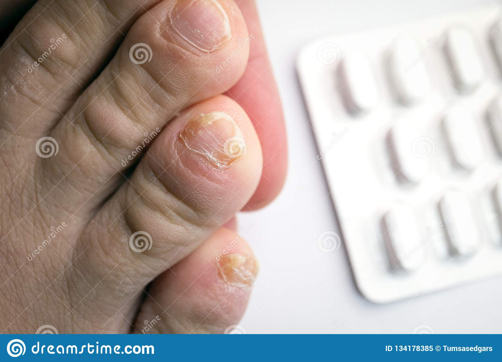Close Up Of Nail Fungus Infection On Toe Finger Stock Image Image