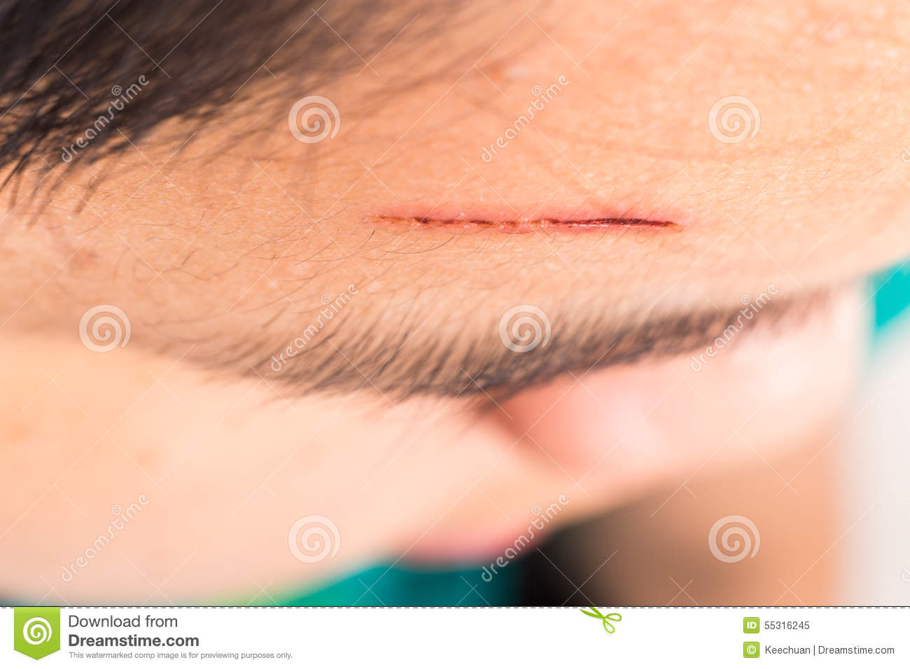 Close Up Of Painful Wound On Forehead From Deep Cut Stock ...