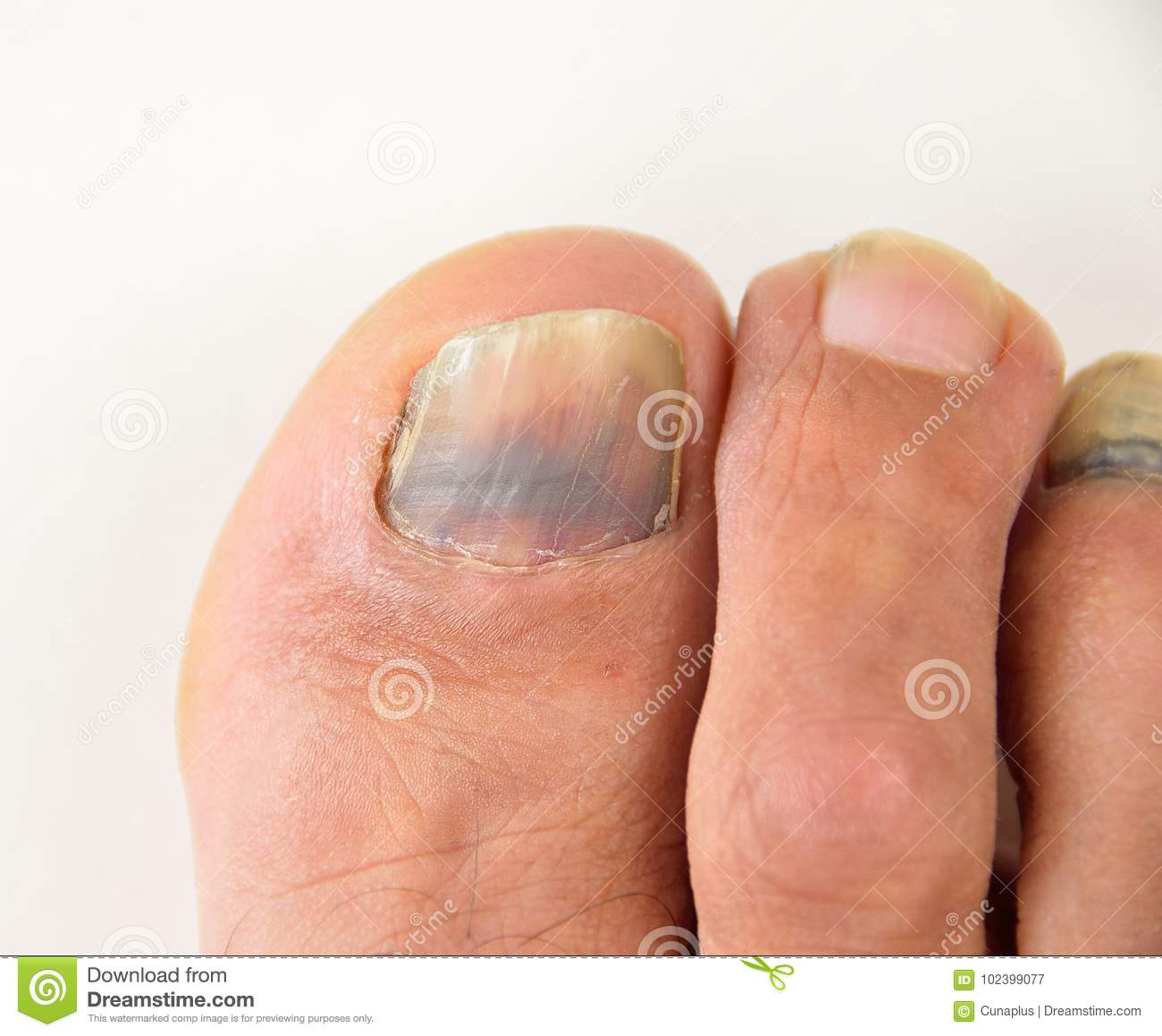 Hematoma in a nail stock image. Image of finger, onychomycosis ...