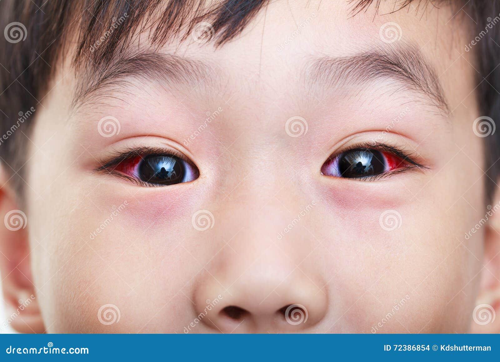 Close-up van chronische bindvliesontsteking met een rode iris