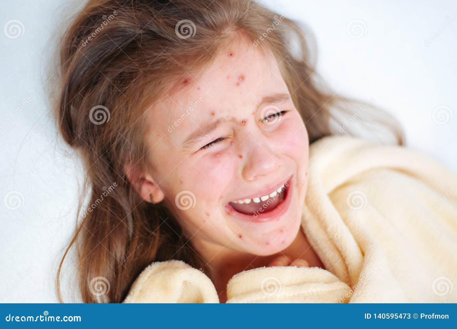 Close-up van leuk droevig schreeuwend meisje in bed Varicellavirus of de uitbarsting van de Waterpokkenbel op kind
