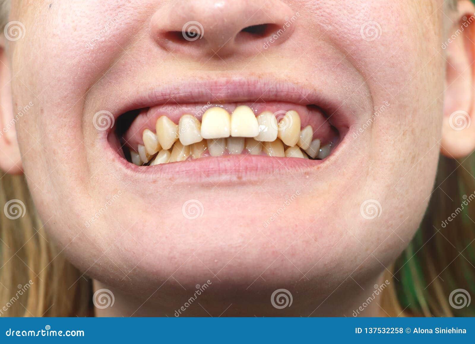 Close-up van niet succesvol geïnplanteerde tandimplants