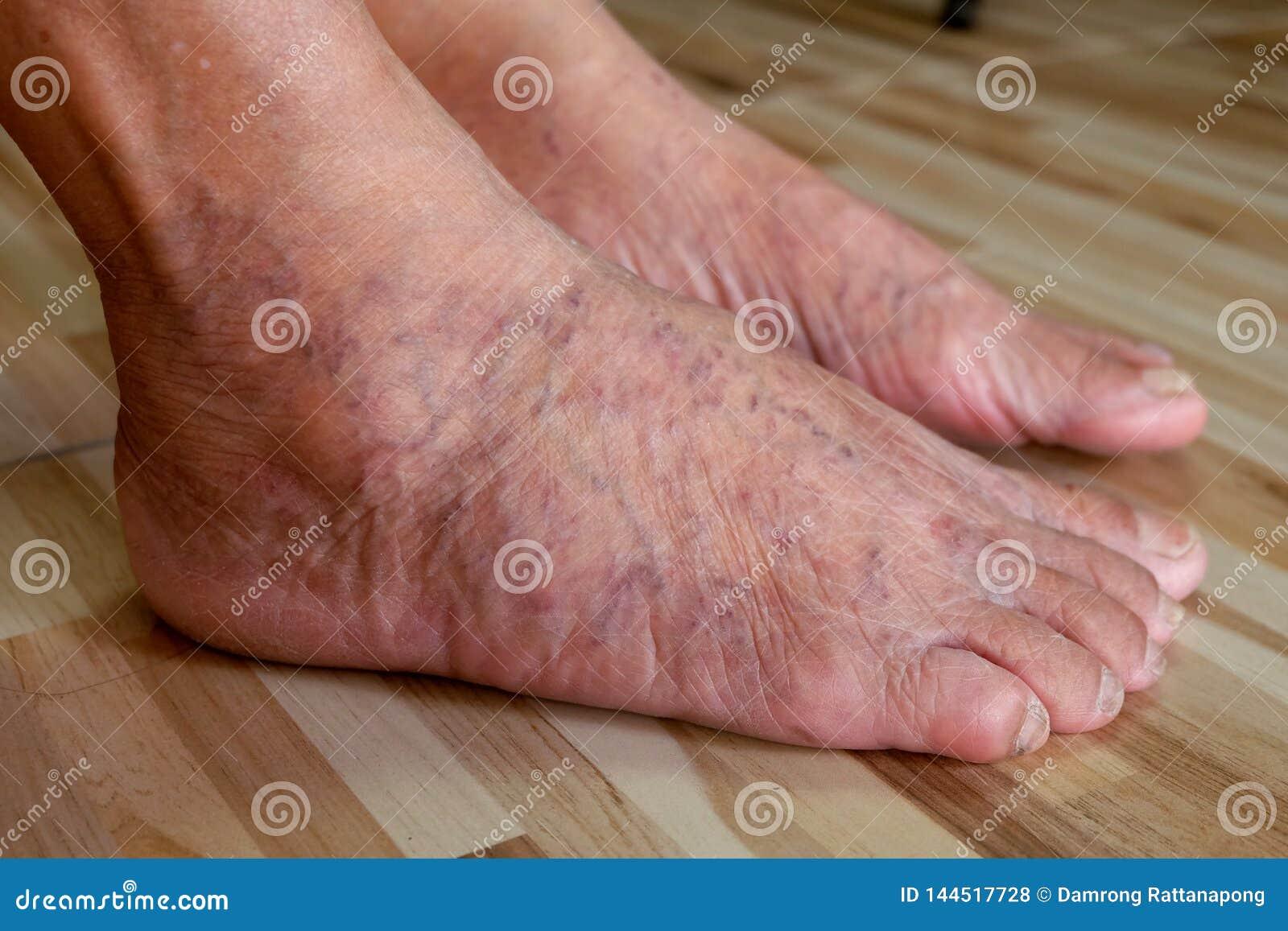 varicose foot woman fotografii)