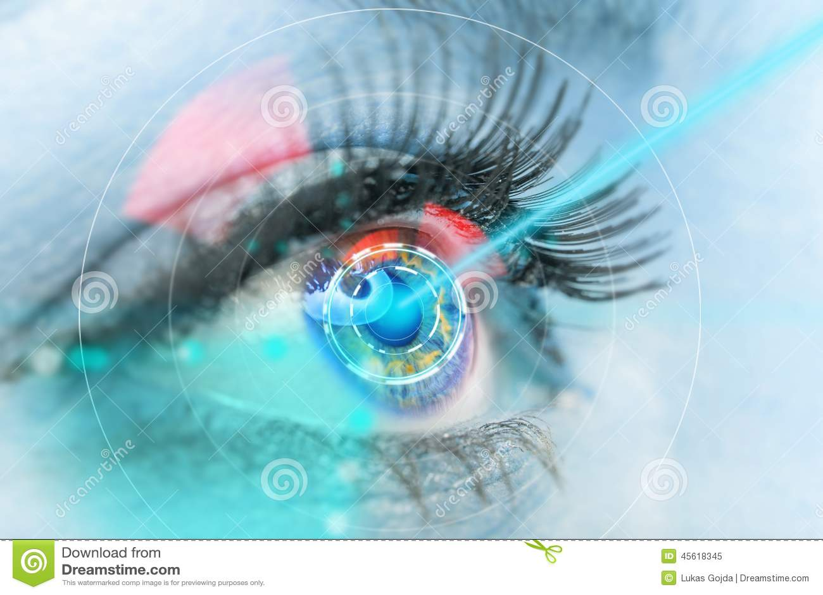 Eye Color Laser Surgery