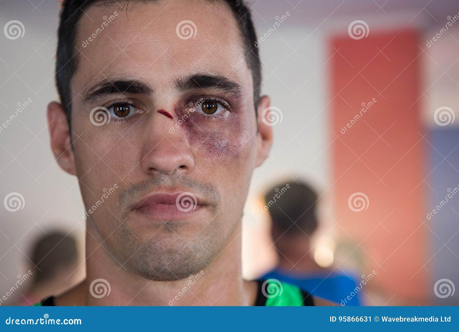 Close-upportret van mannelijke bokser met neusverwonding