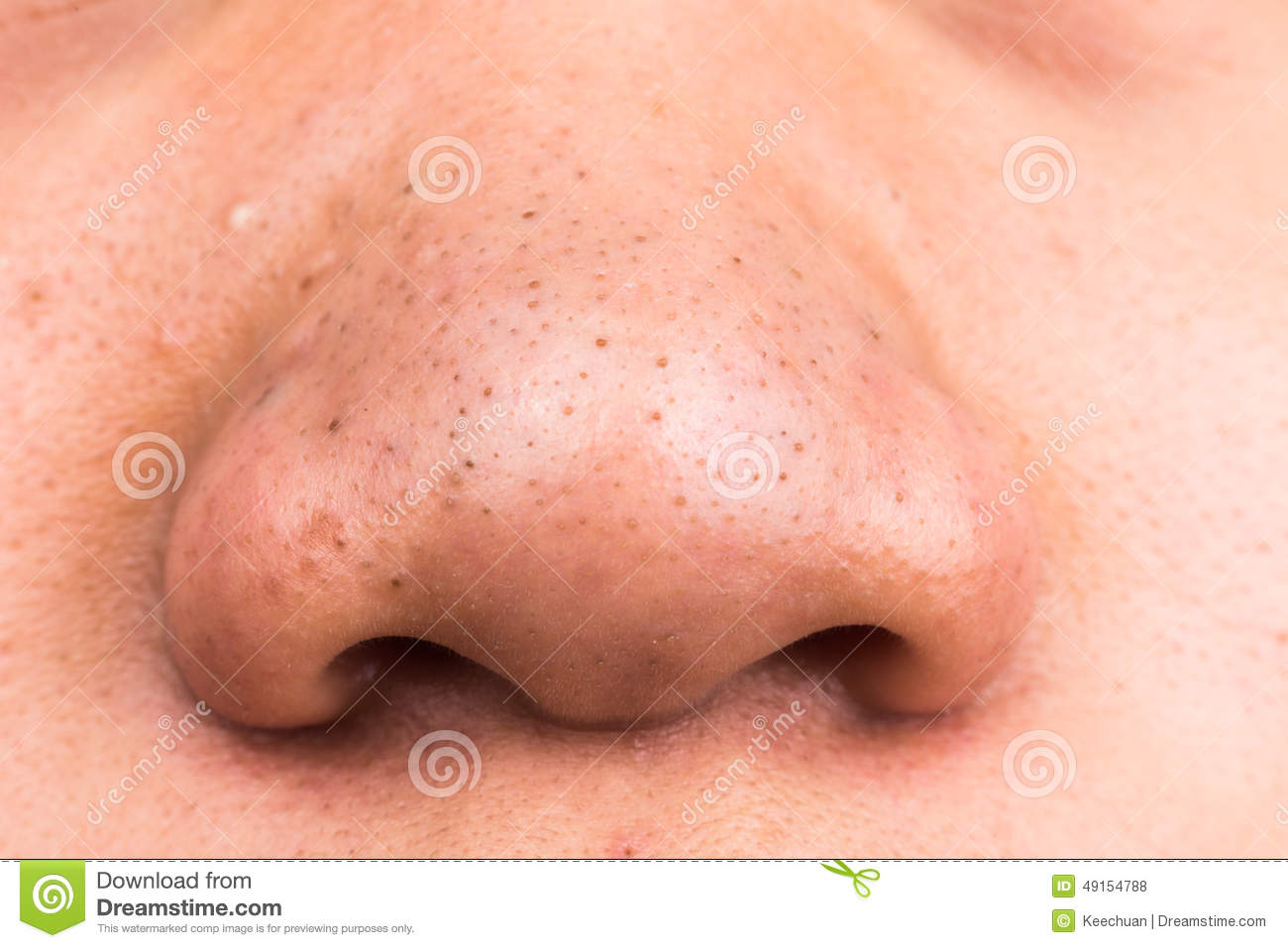 Closed-up Of Pimple Blackheads On The Nose Stock Photo - Image of