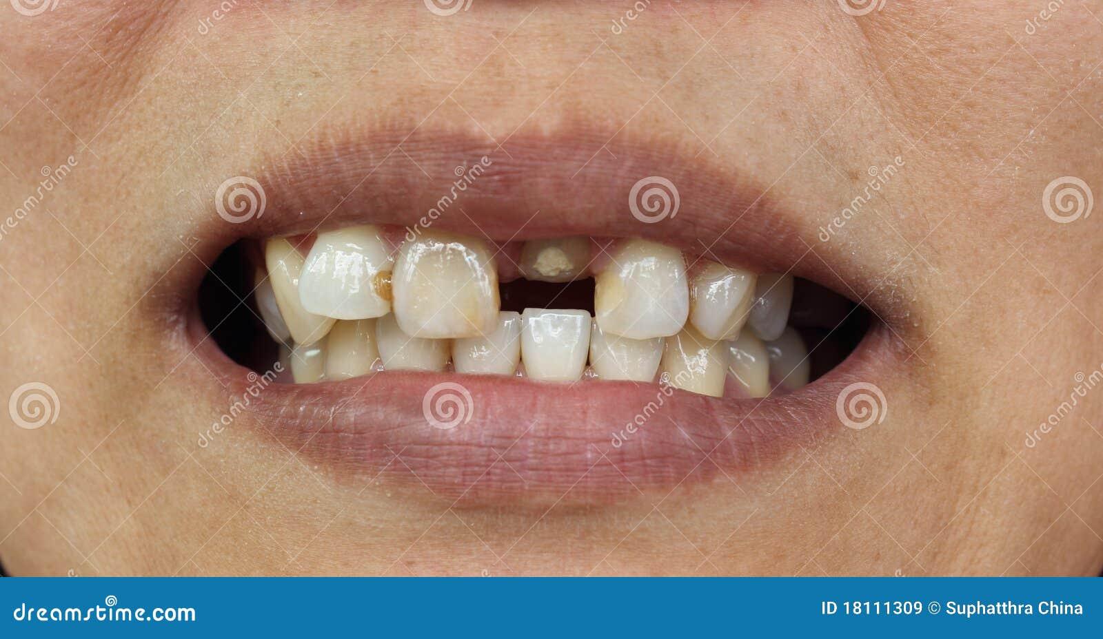 Выбитые зубы это вред здоровью наступало