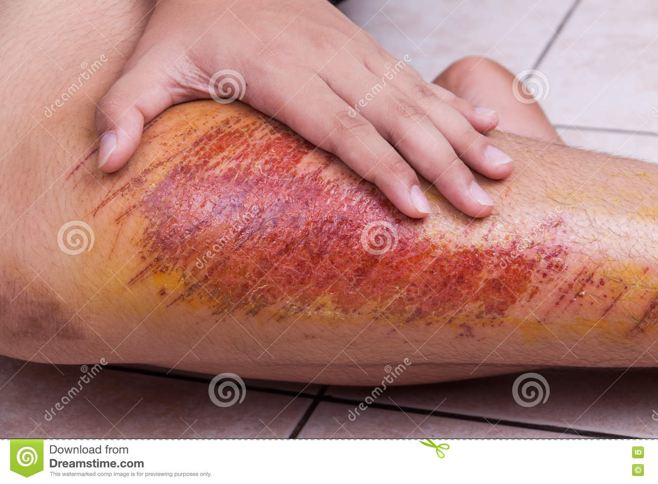 Closeup Hand Embracing Injured Knee With Painful Abrasion From F