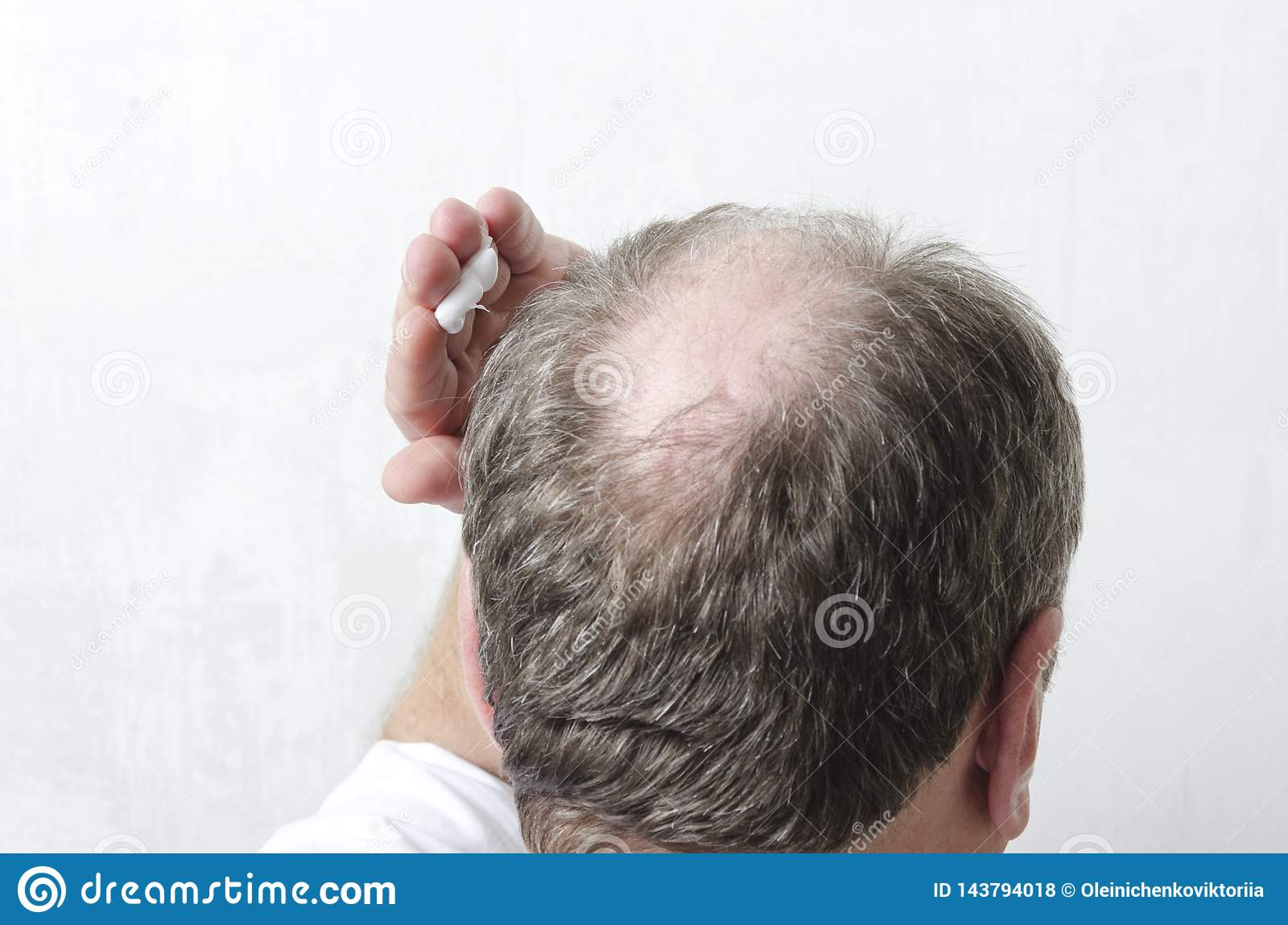 Man applying special cream for hair growth.Concept of beauty procedure for hair care