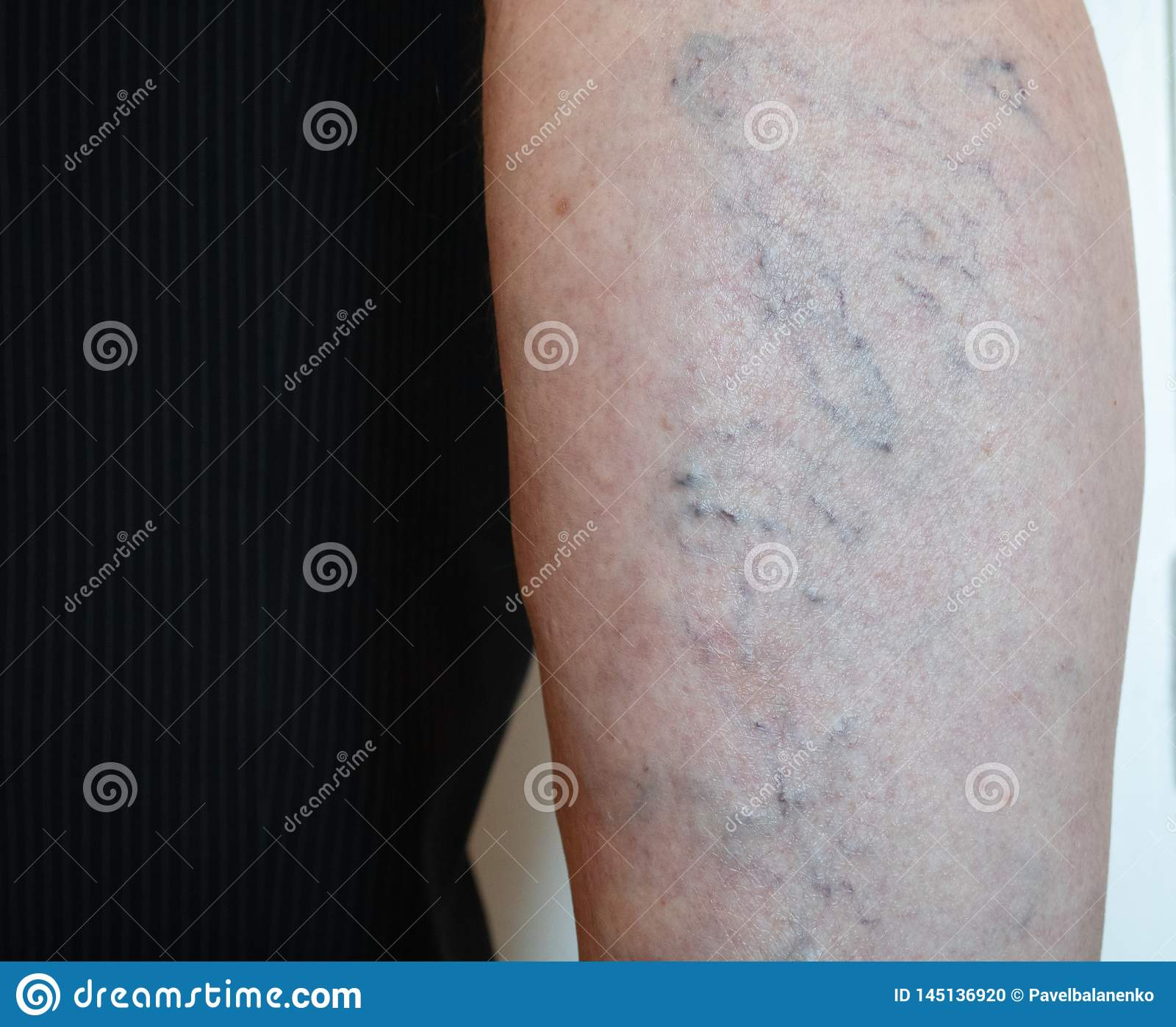 varicose capilary