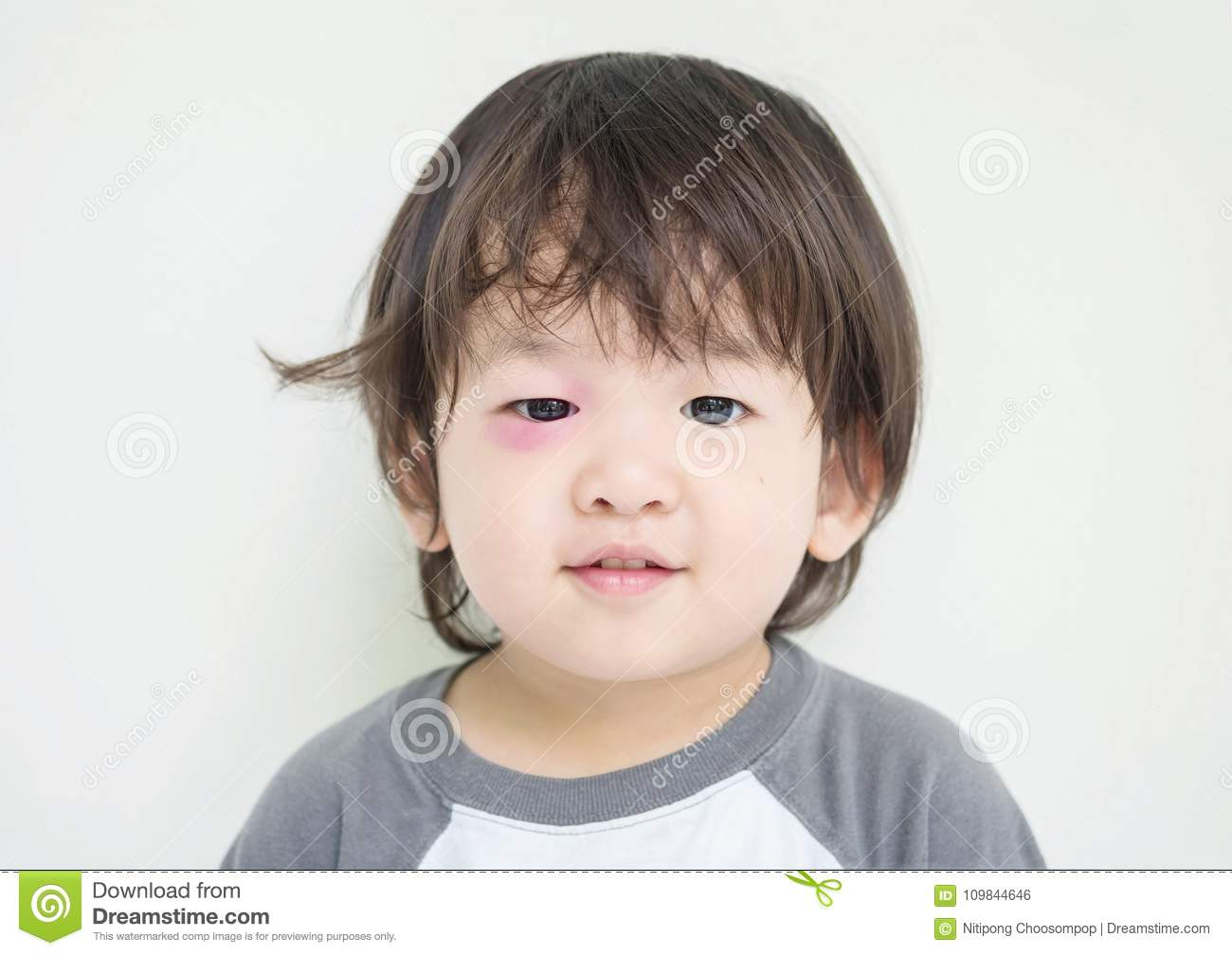 Closeup swollen eye of kid from insect bite with red bruise but he can smile