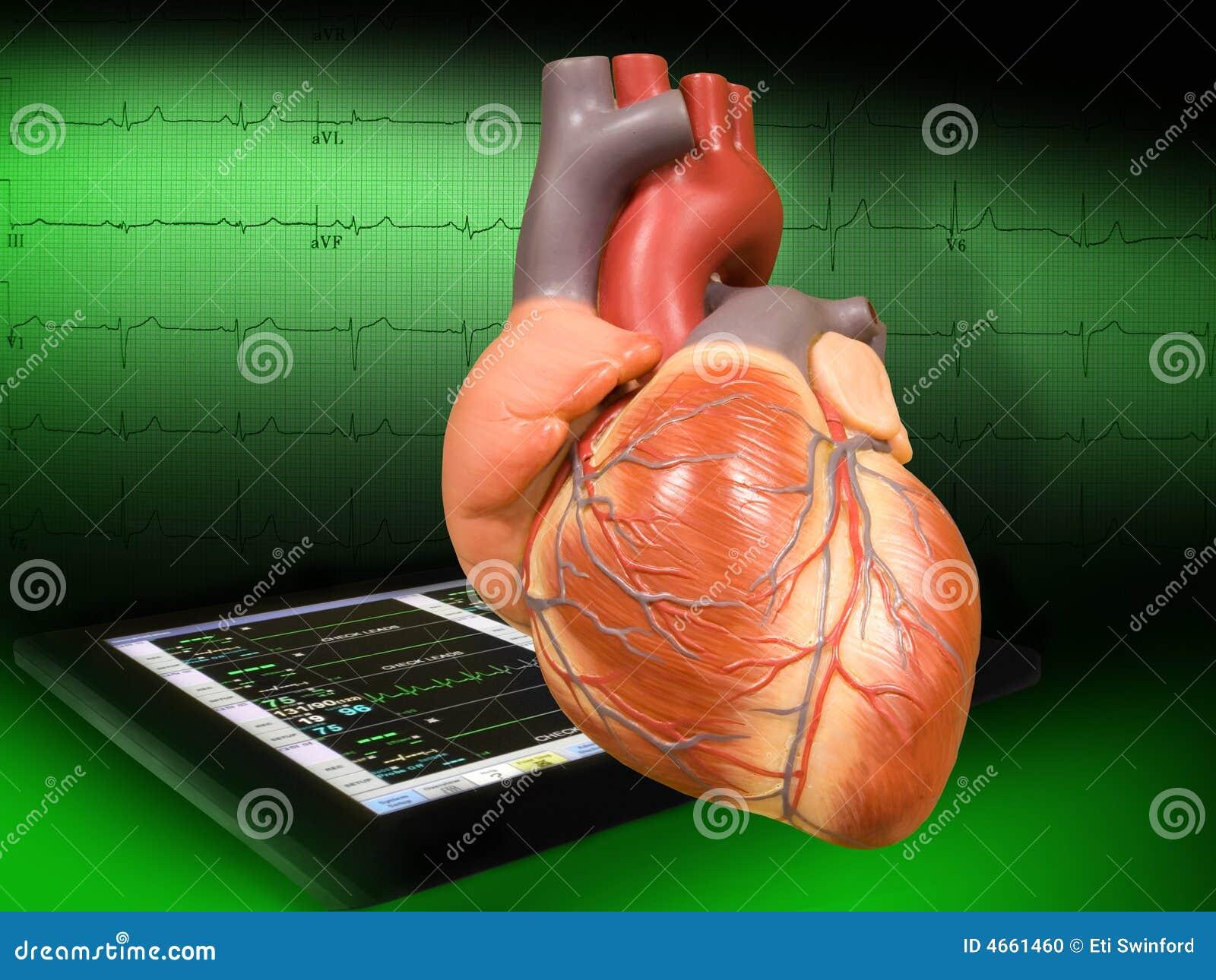 Coeur avec EKG