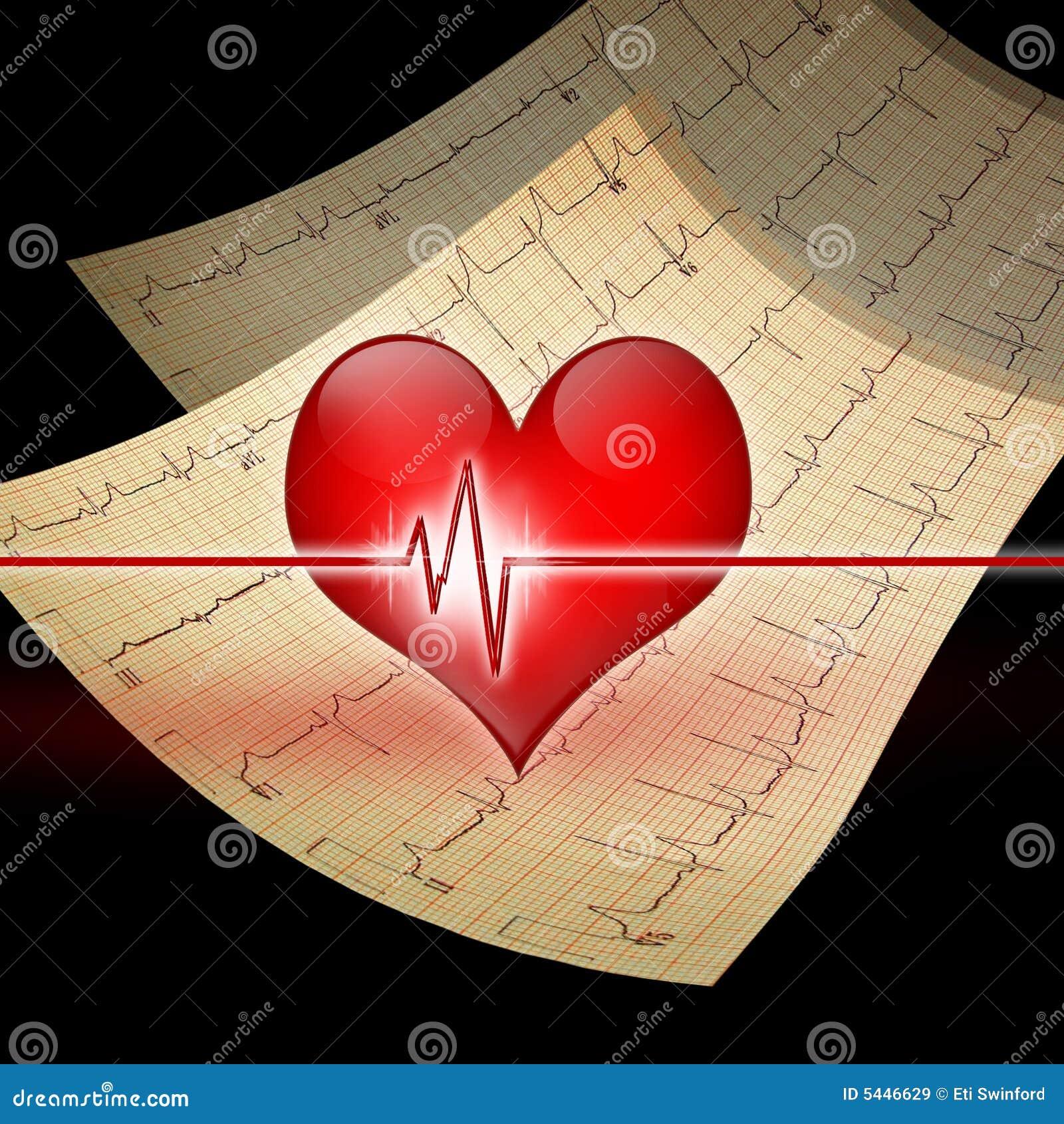 Coeur avec l ekg