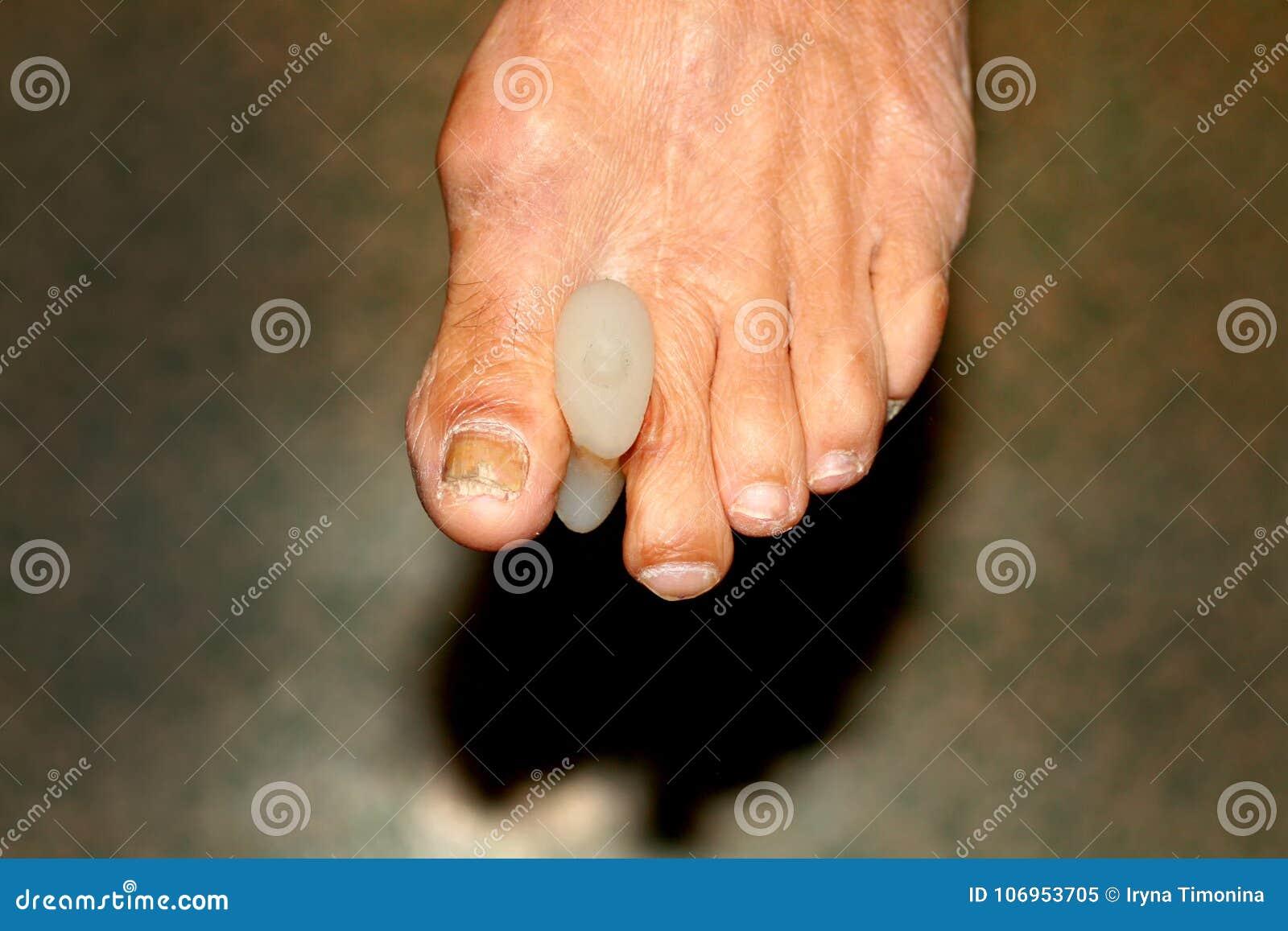 Cojines interdigitales particiones pie Maíz en los dedos del pie Curvatura de fingeres Cojín interdigital del maíz