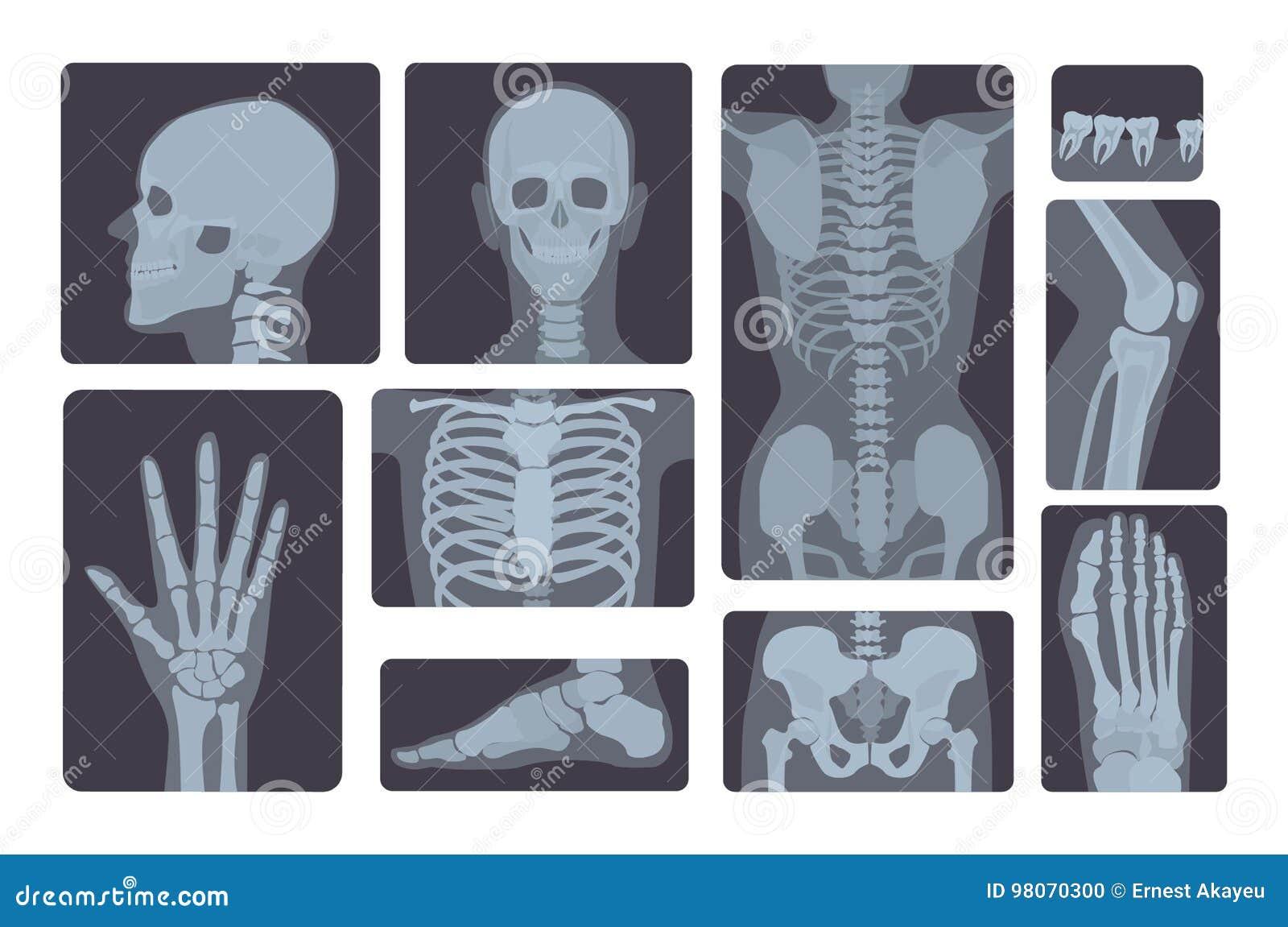 Coleção realística dos tiros do raio X Mão, pé, crânio, pé, caixa, dentes, espinha e outro do corpo humano