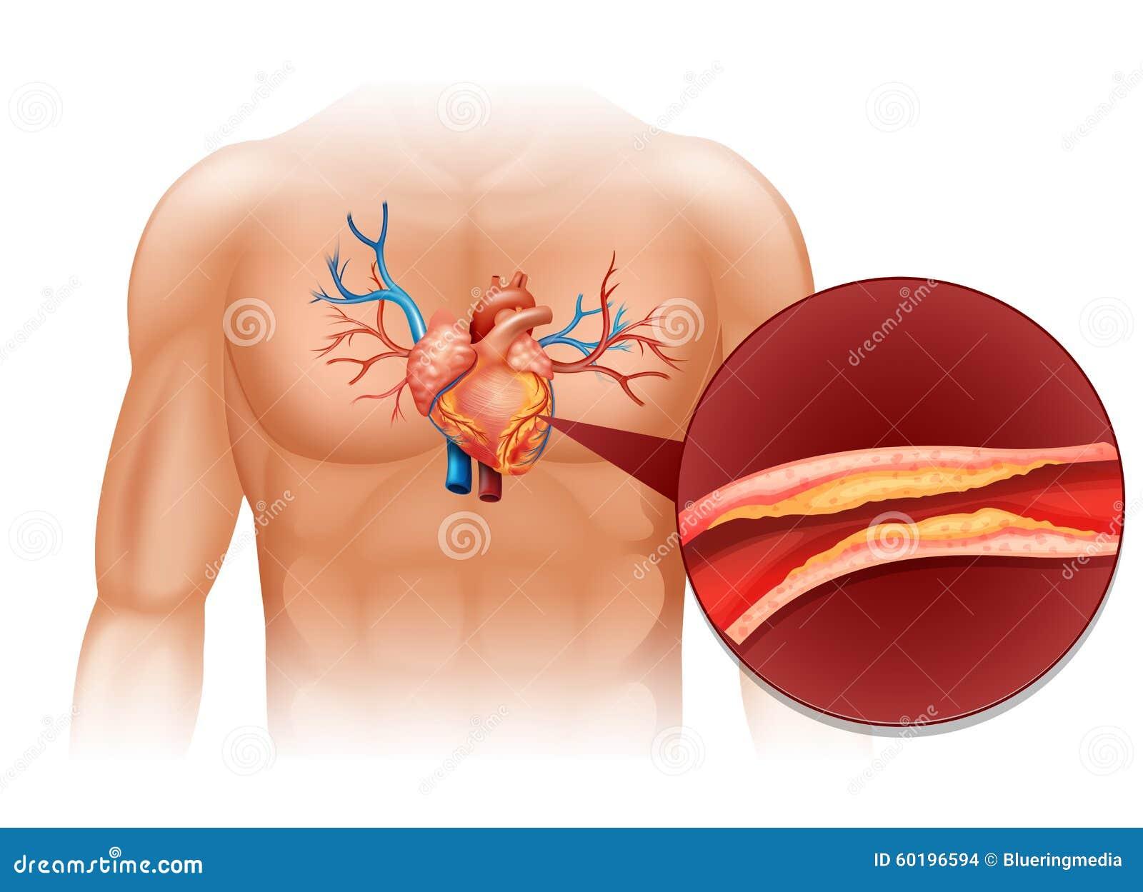 Colesterol Del Corazón En Cuerpo Humano Ilustración del Vector ...