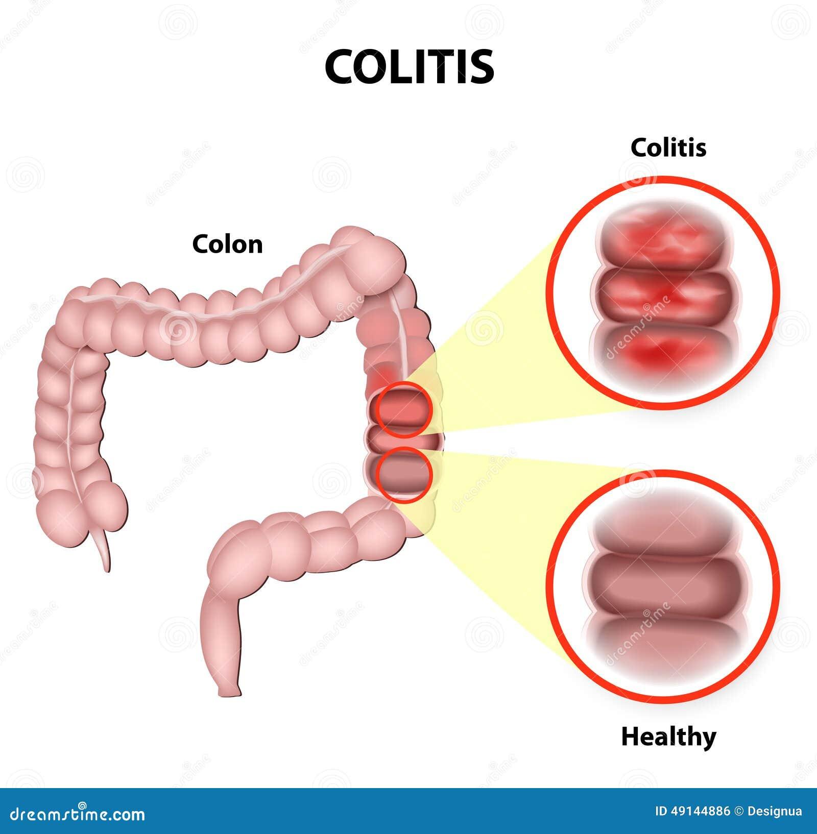 Colitis Stock Vector