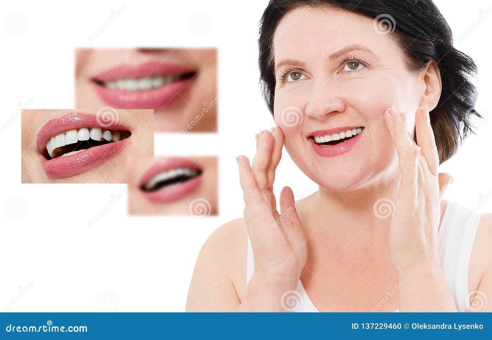 Collage av sunt le folk Härlig mellersta ålderkvinna med vita fanér och perfekt leende Tand- medicin för tandomsorg
