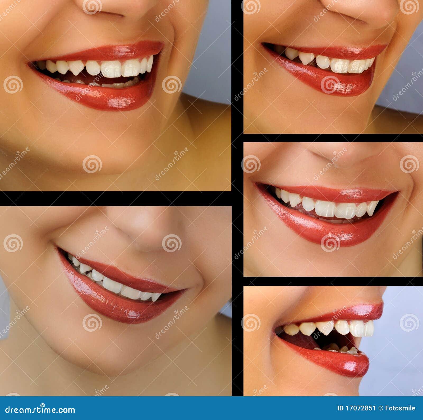Collage de la sonrisa