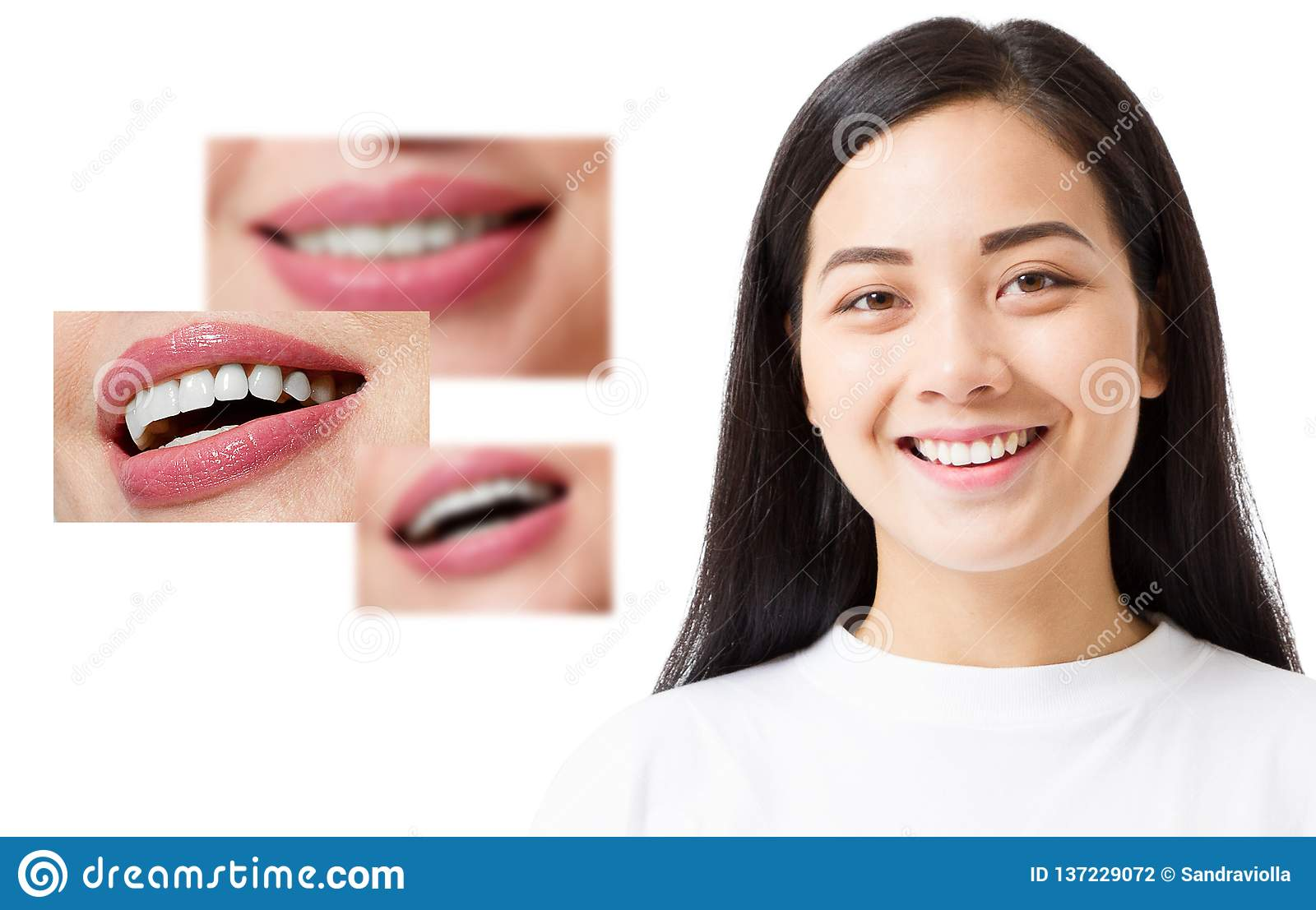 Collage of healthy smiling people. Beautiful asian young woman with white veneers and perfect smile. Tooth care dental medicine.