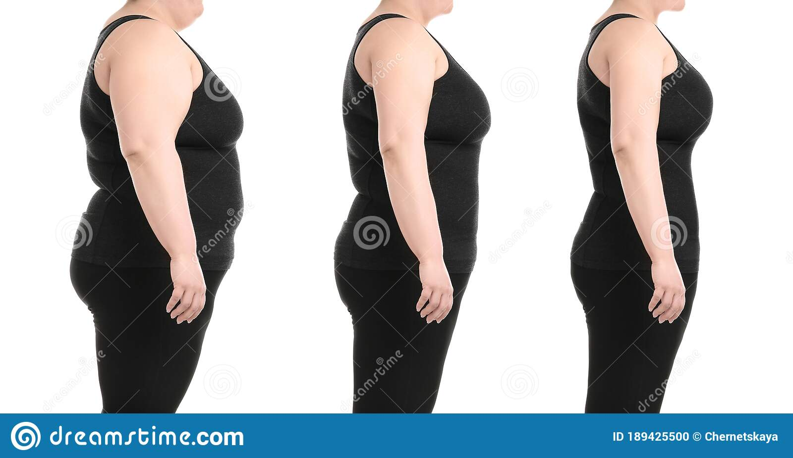 Collage With Photos Of Overweight Woman Before And After Weight ...