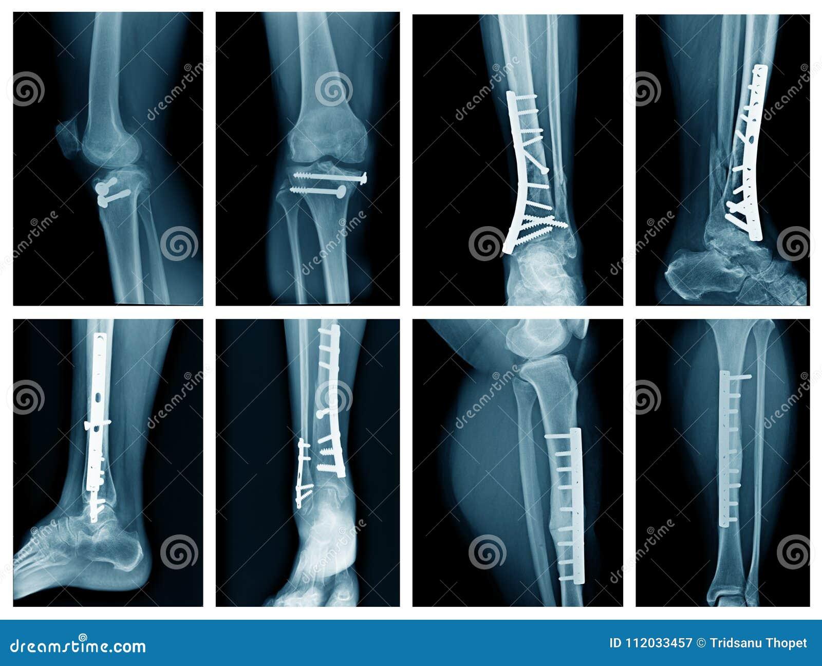 Collection leg x-ray