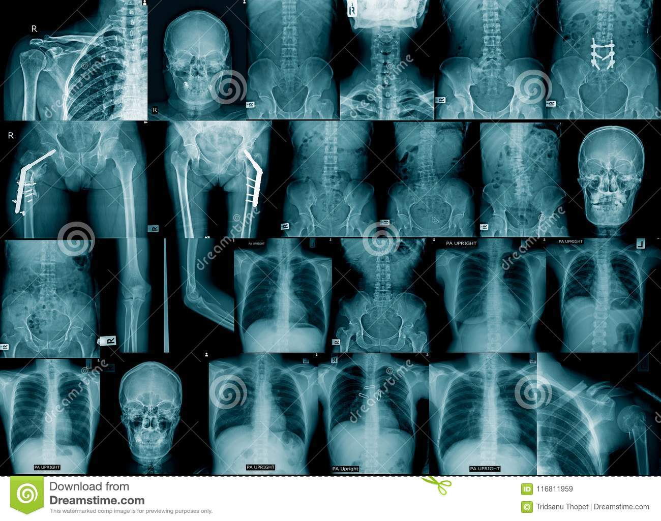 Collection x-ray image