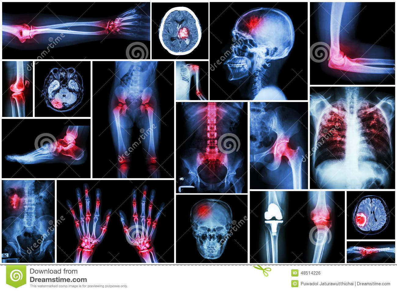 Collection x-ray multiple disease (arthritis,stroke,brain tumor,gout,rheumatoid,kidney stonepulmonary