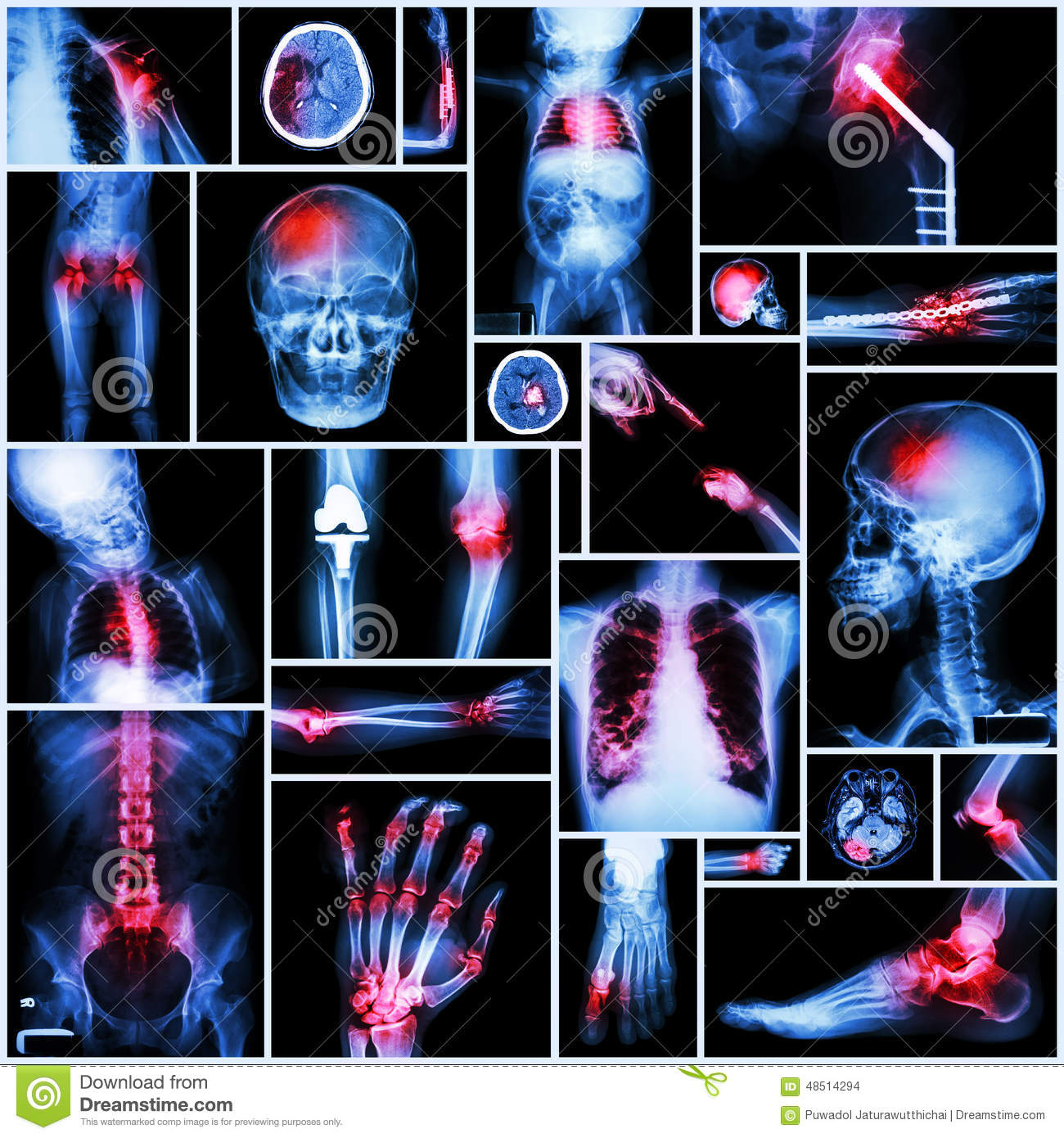Collection of X-ray multiple part of human,Orthopedic operation and multiple disease (Shoulder