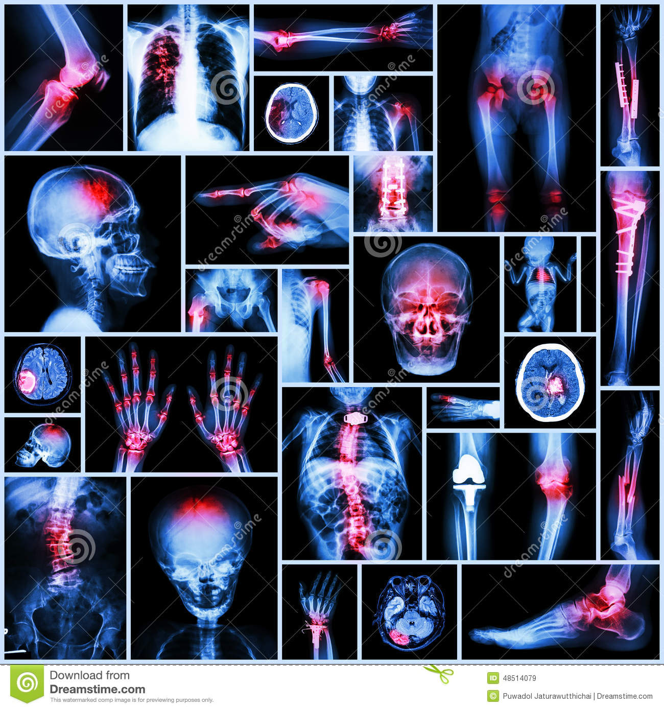 Collection X-ray Part Of Human,Orthopedic Operation ... Orthopedic Surgeon X Rays