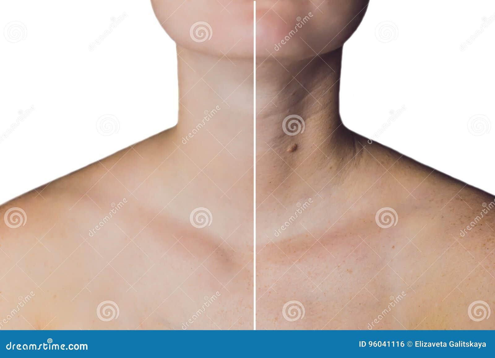 Collo di una donna prima e dopo botox Giovane e vecchio collo