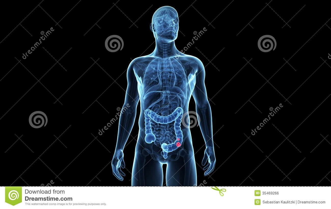 Colon Cancer Stock Video Footage Illustration Of Illustration