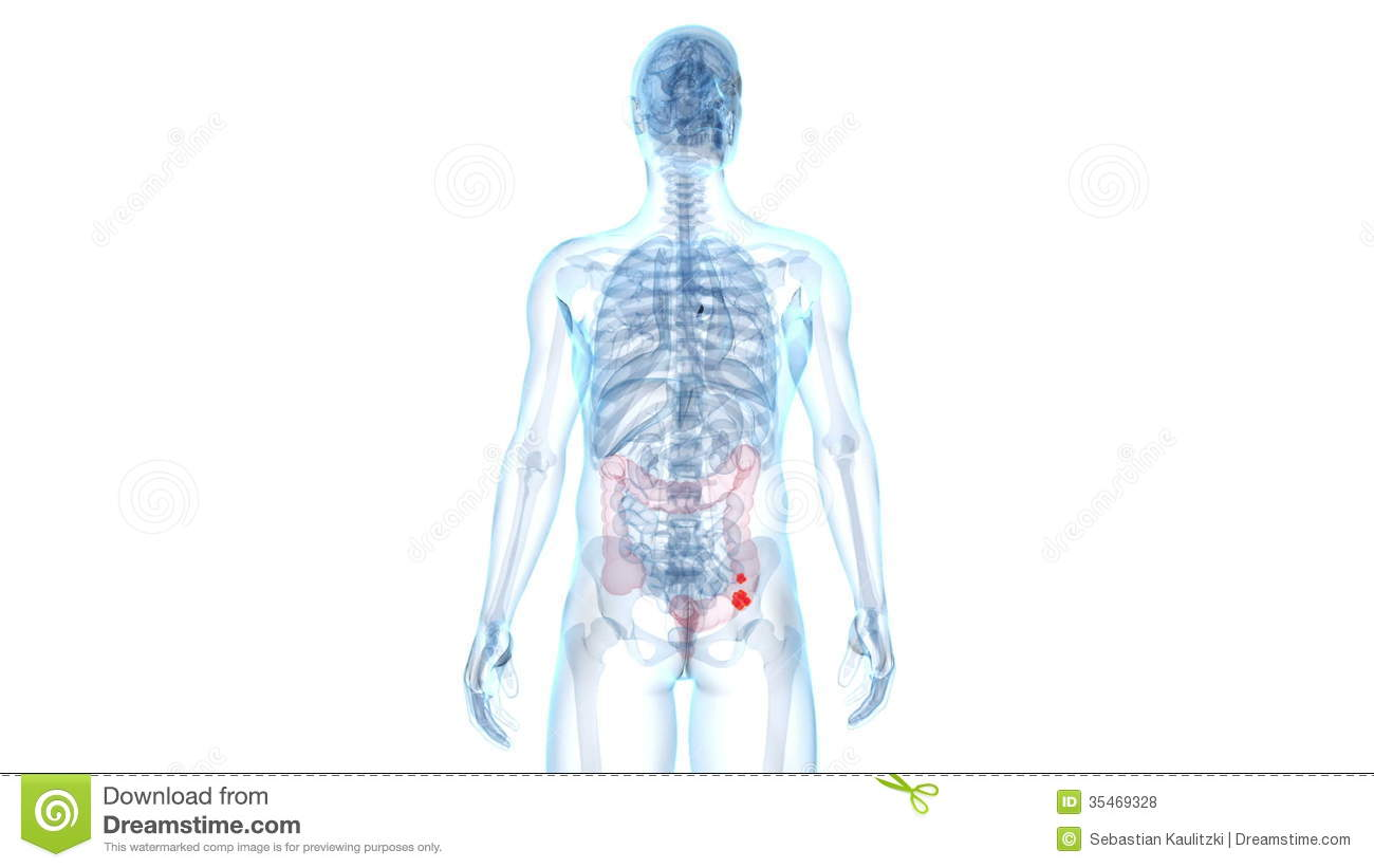 Colon Cancer Stock Video Illustration Of Healthy Rendering 35469328