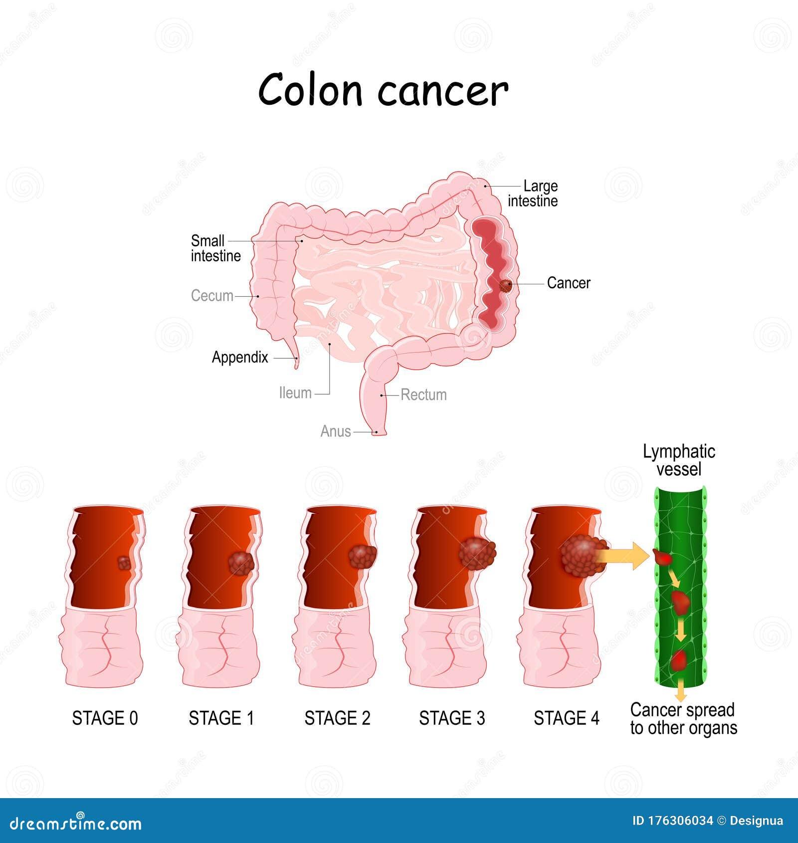 il papilloma alla vescica e un tumore un exemplu este nemathelminthes