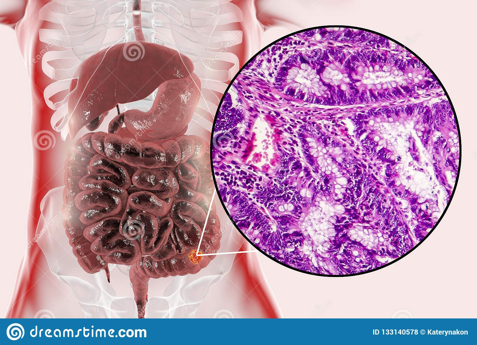 Colon Cancer  Illustration And Photo Under Microscope