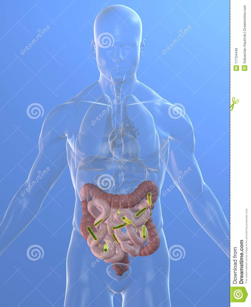 Colon Infection Royalty Free Stock Image