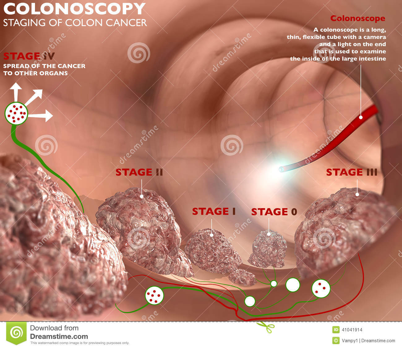 Colonoscopy And Probe Stock Illustration - Image: 41041914