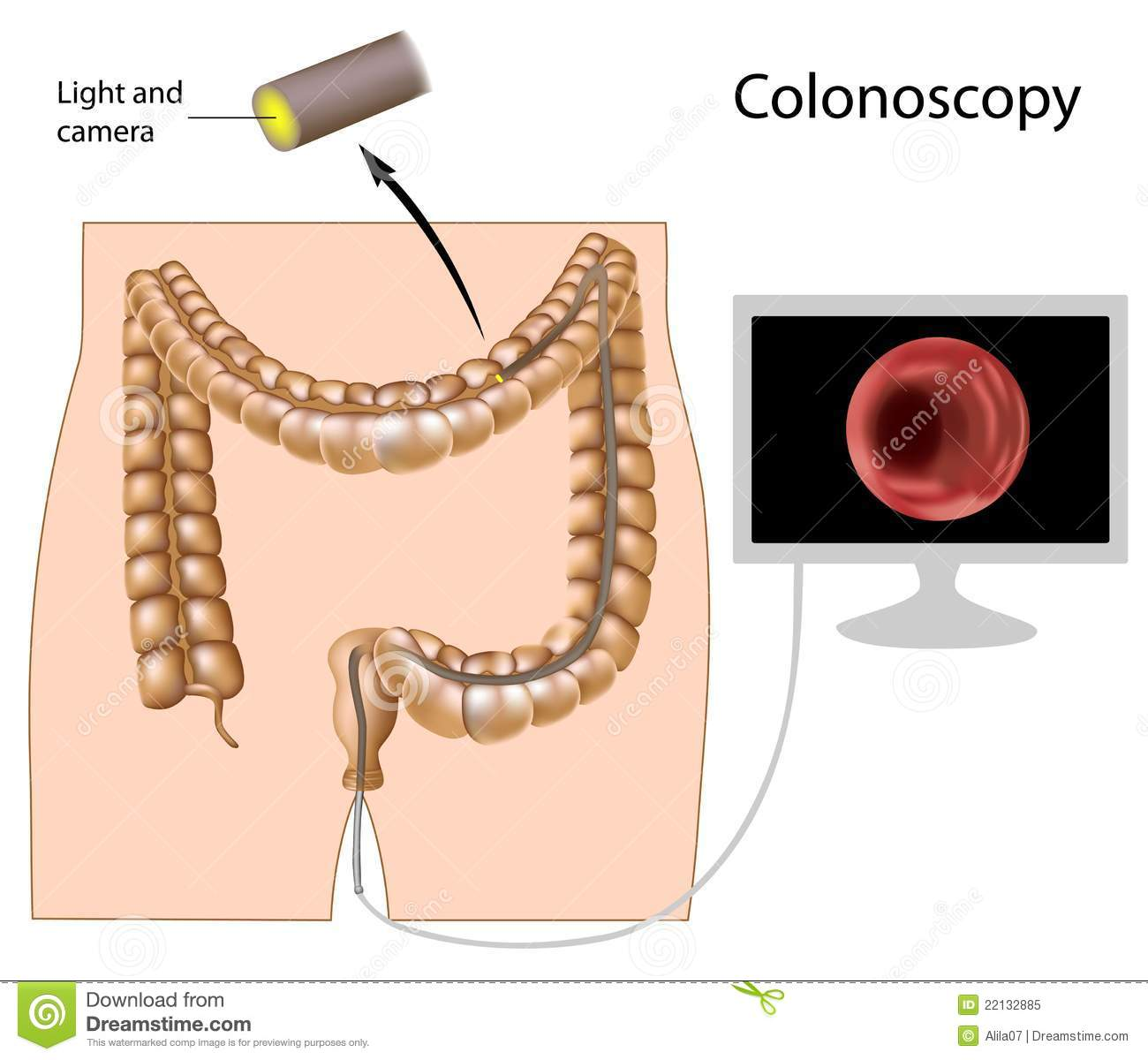 Colonoscopy Procedure Royalty Free Stock Photo - Image: 22132885