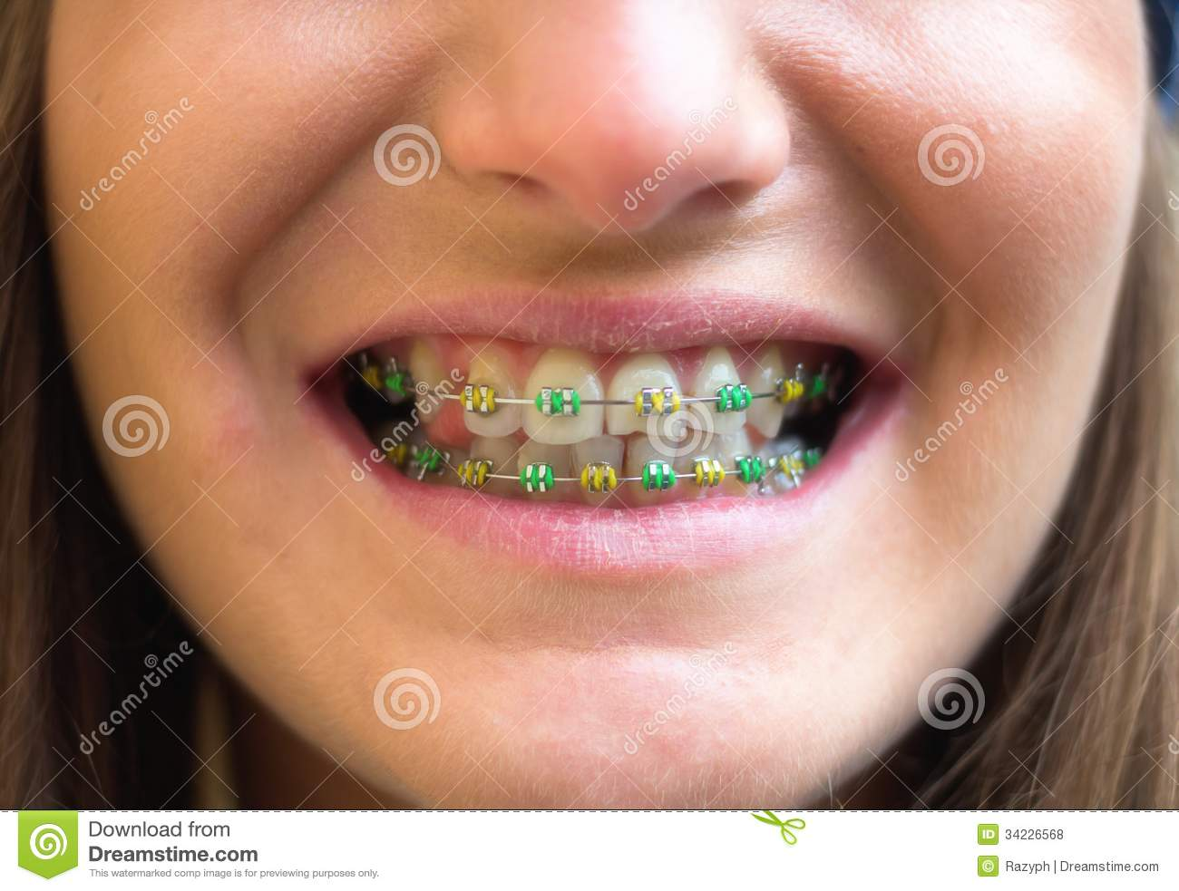 Colored Braces Stock Photo Image Of Equipment Lips