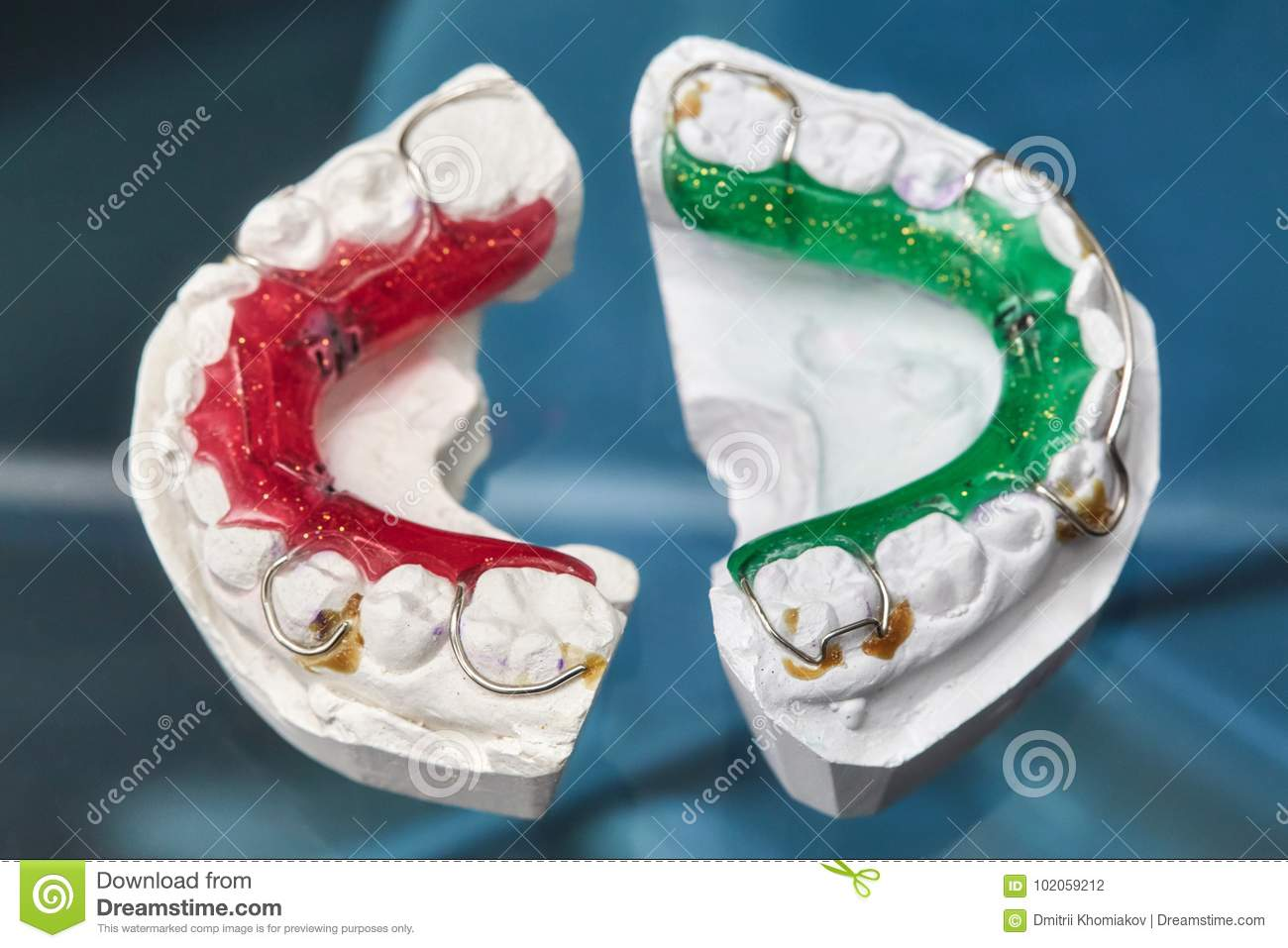 Colorful Dental Braces Or Retainers For Teeth On Glass