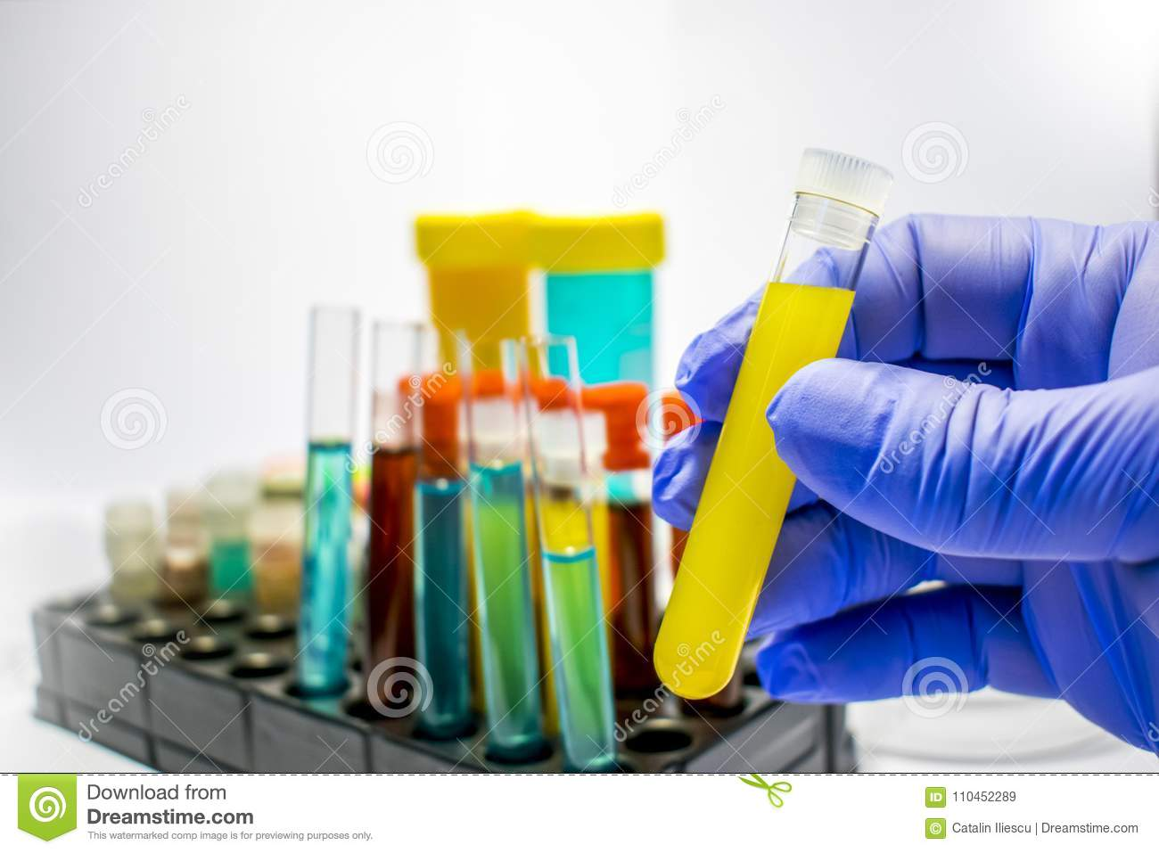 Colorful Laboratory Test Tubes, Biochemistry Blood Tests