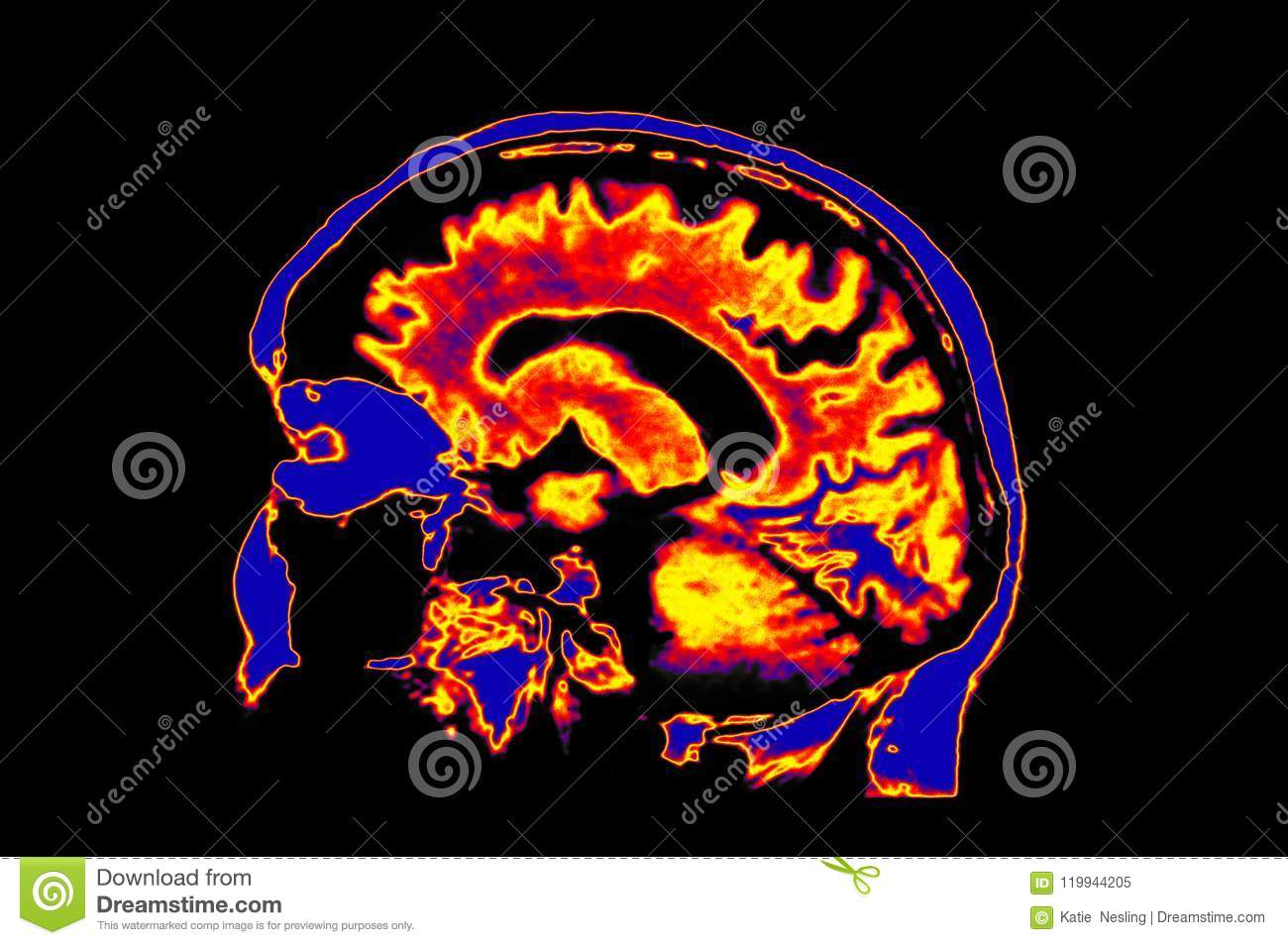 Colorized MRI Image Of Head Showing Brain Stock Image - Image of ...