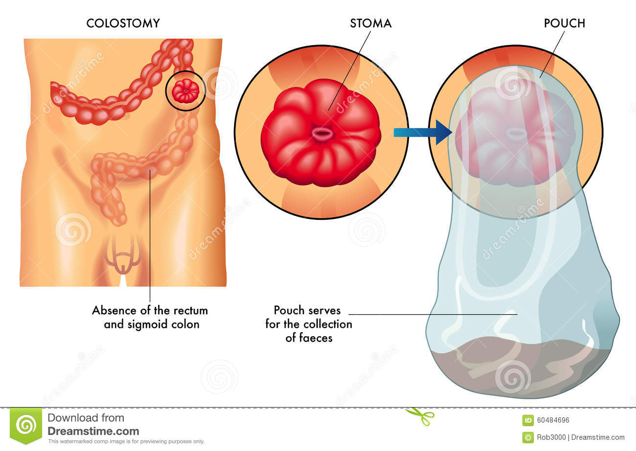 how to change a colostomy bag diagram